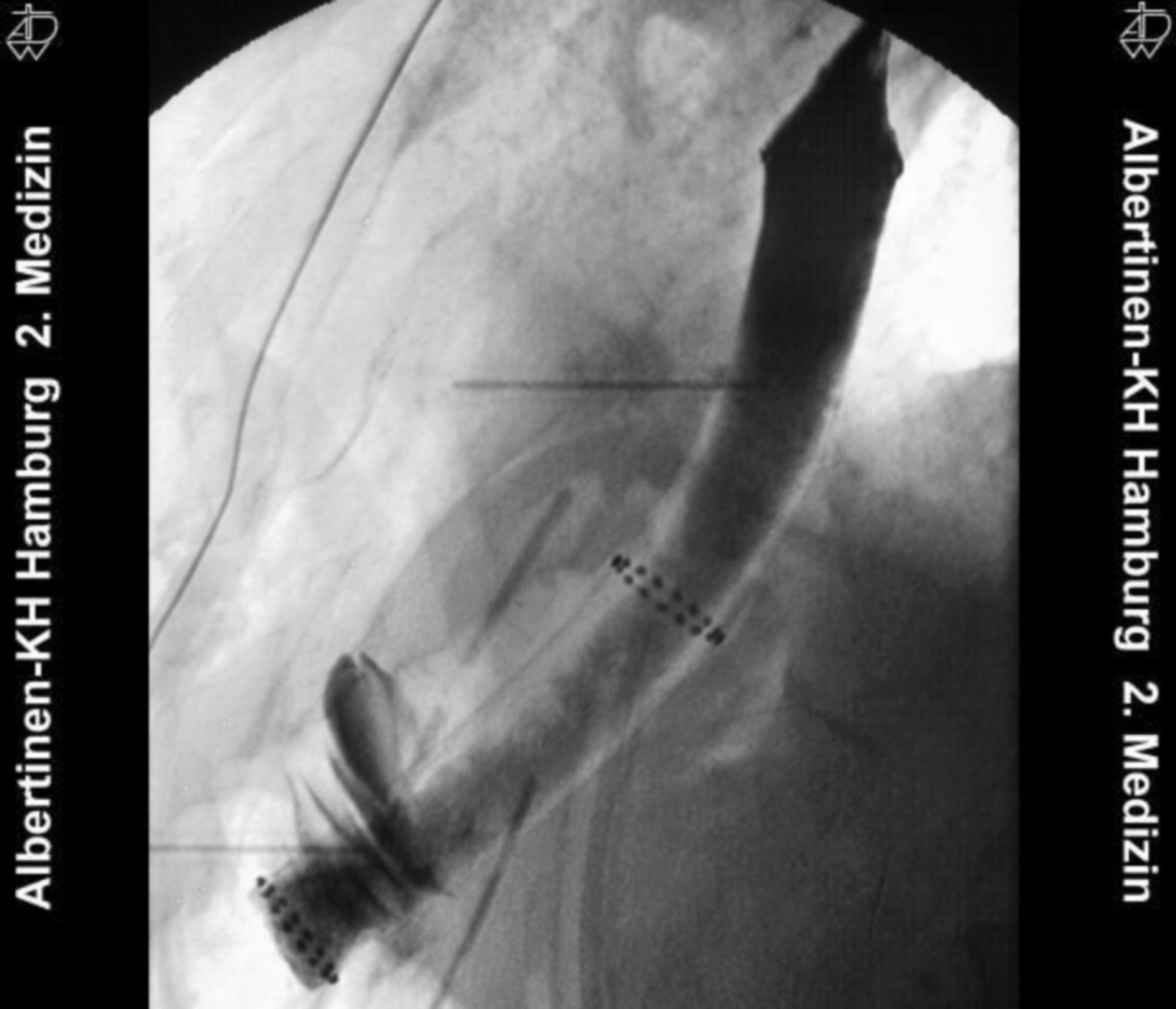 Stent dell'esofago