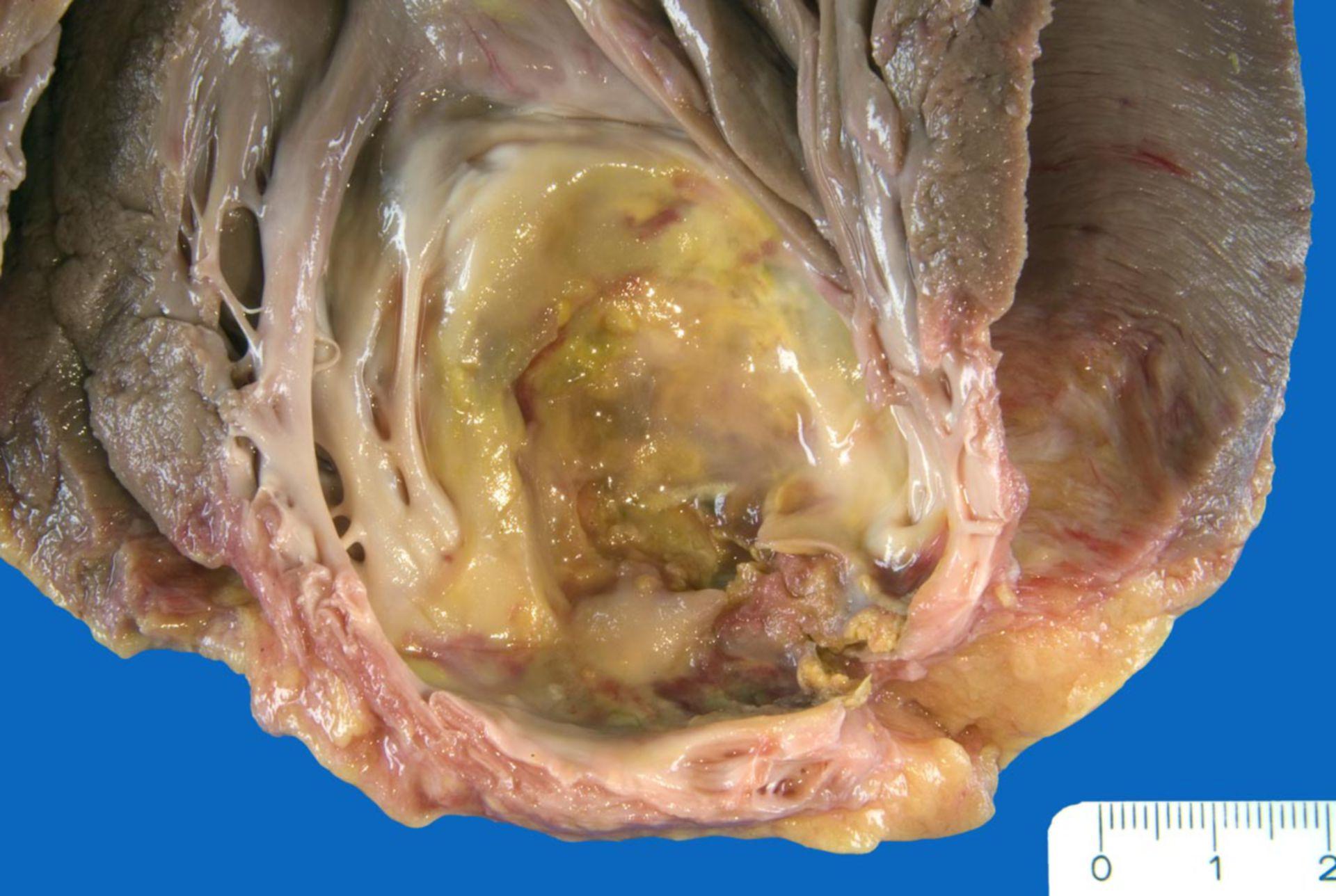 Herzwandaneurysma der Herzspitze