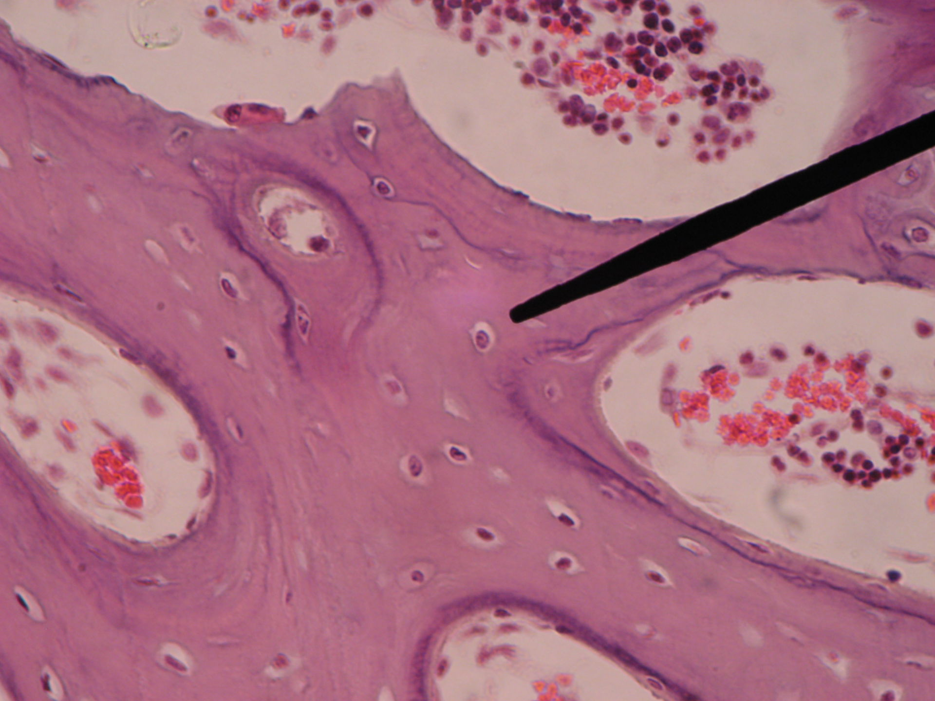 Red bone marrow of a pig fetus-active osteoblasts