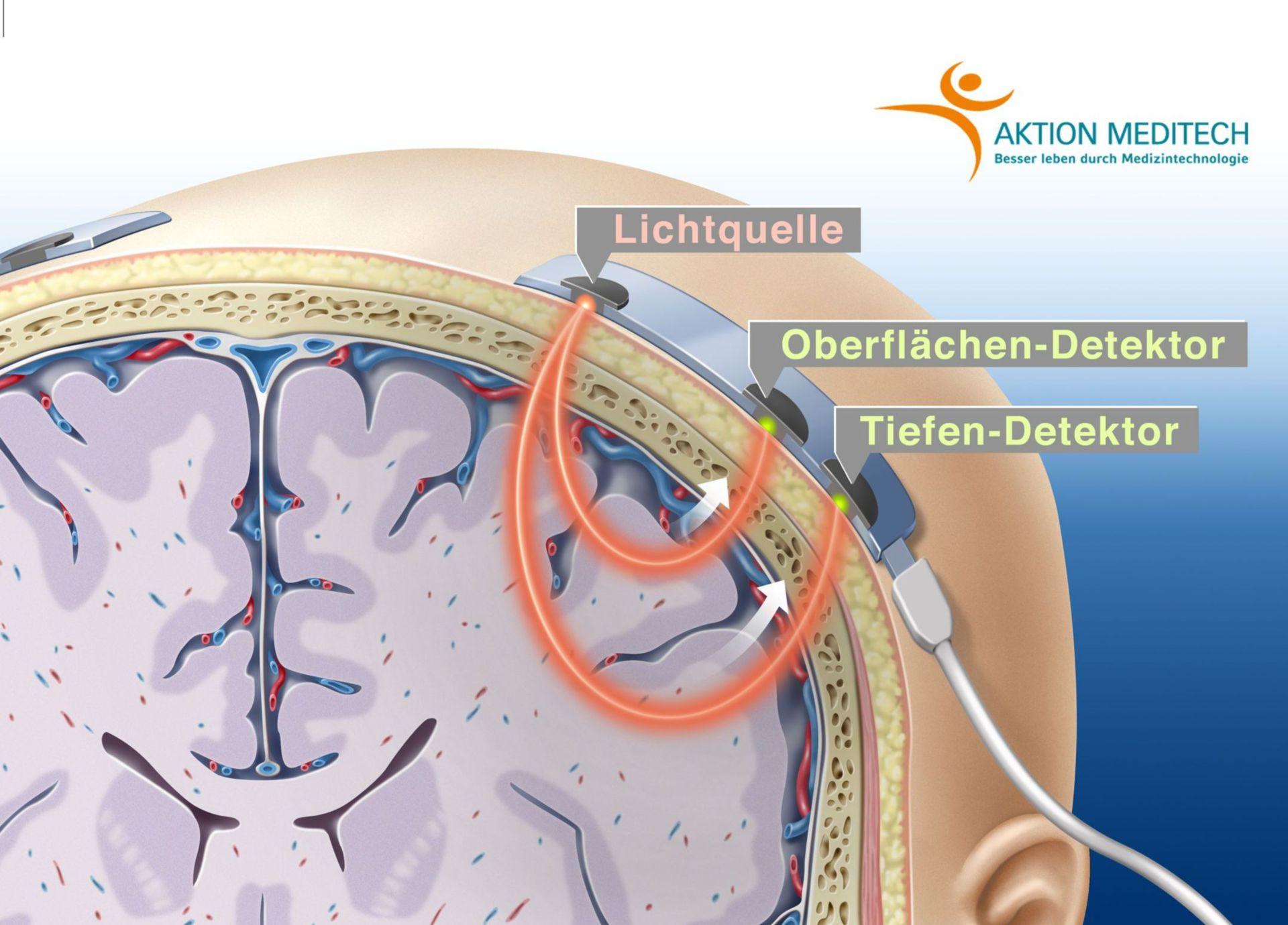 Cerebraloxymetrie