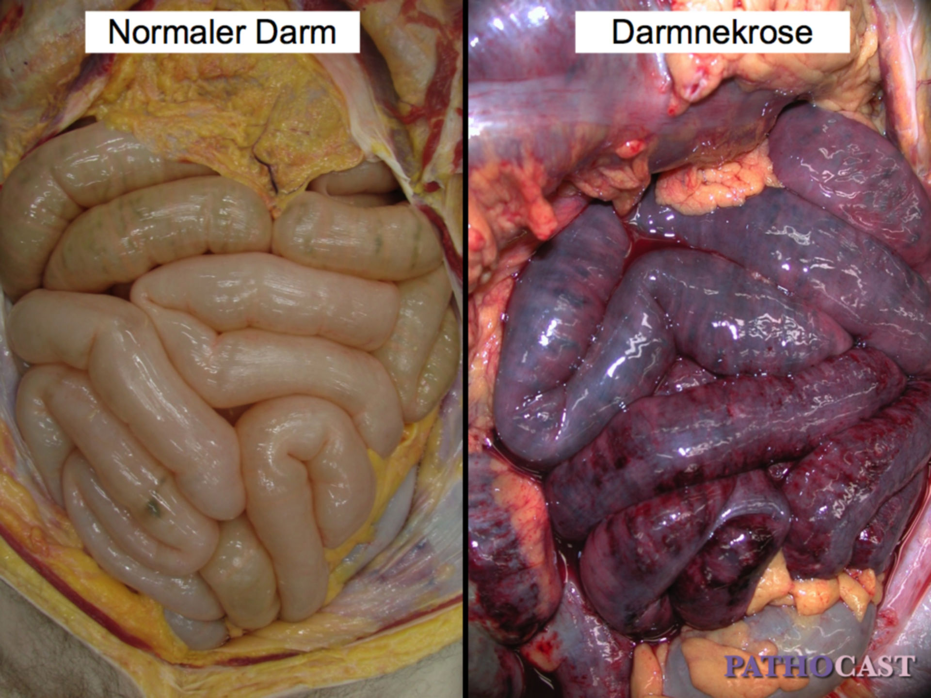 Hämorrhagische Darmnekrose