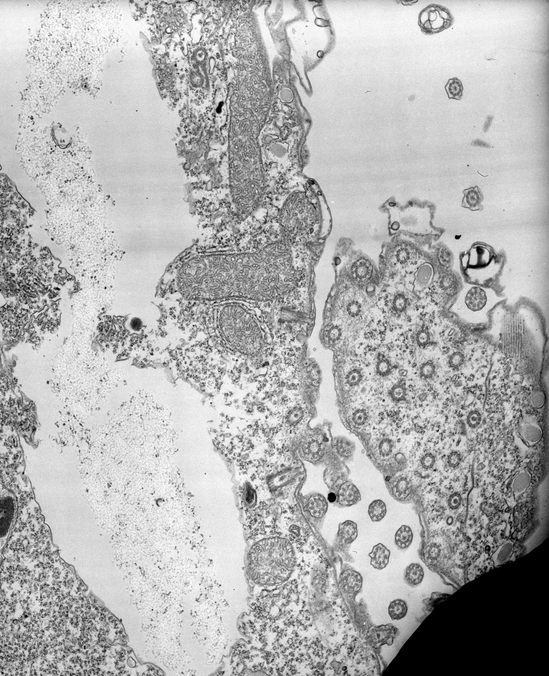 Tetrahymena pyriformis (sito di divisione cellulare) - CIL:39515