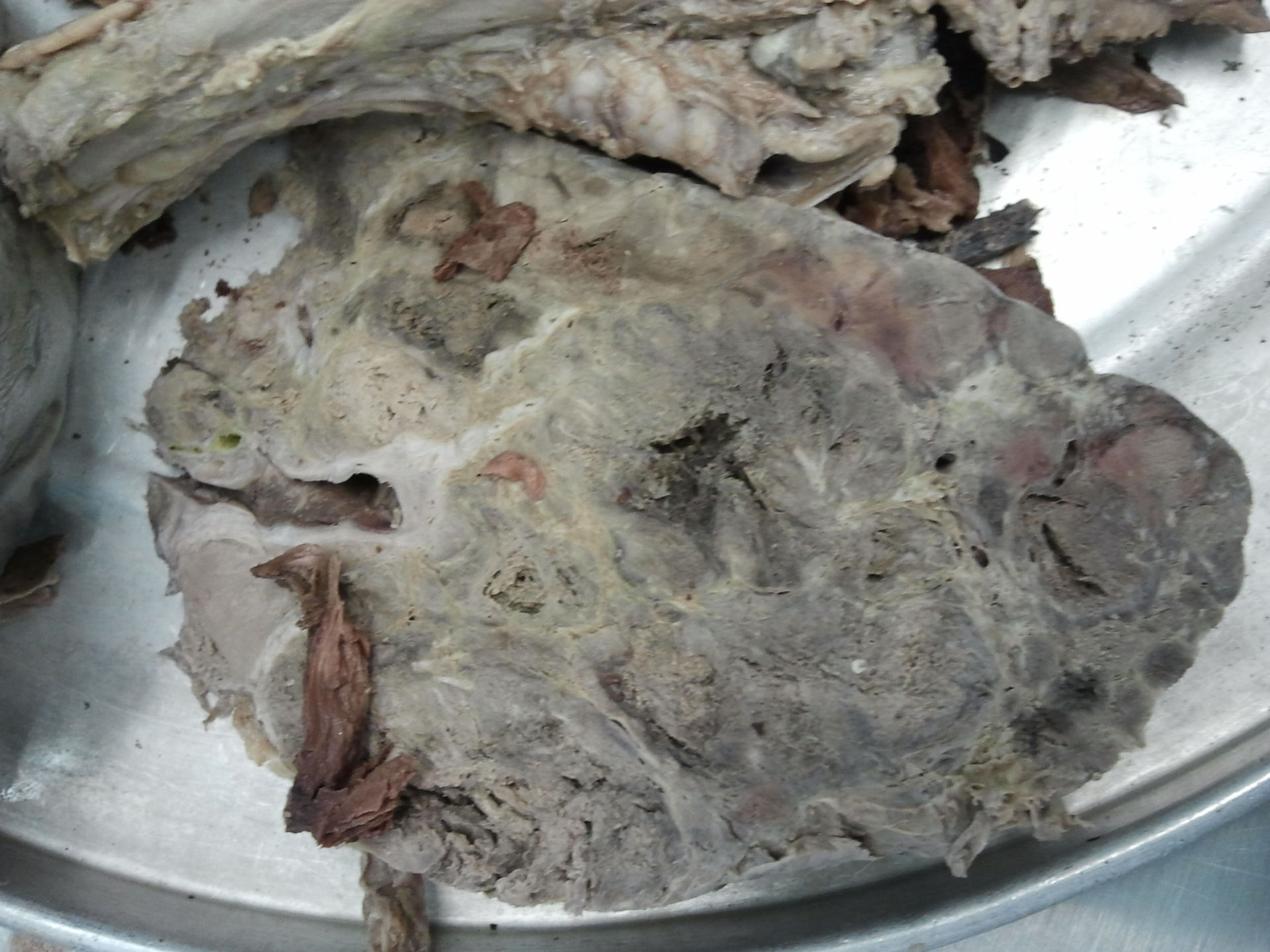Liver with metastases