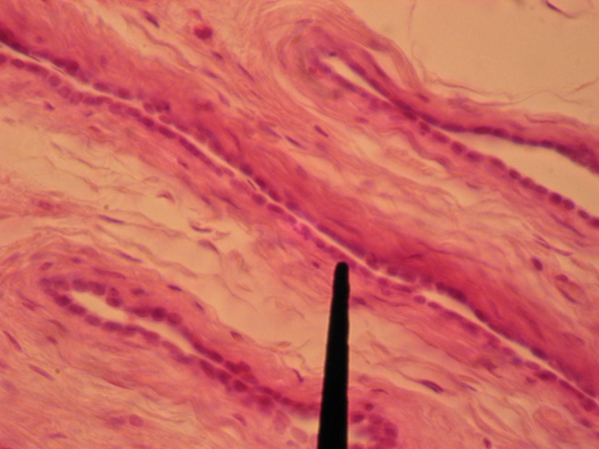 Hoden des Bullen (6) - Tubuli seminiferi recti