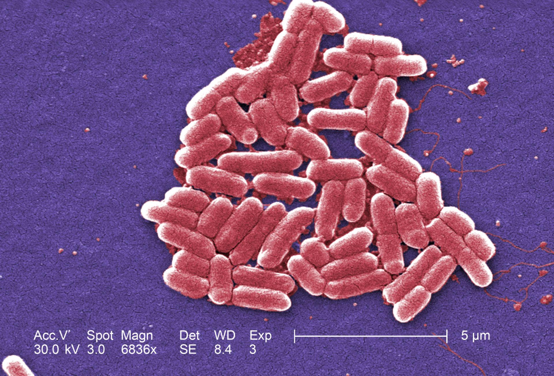 Gram-negative Escherichia coli O157: H7