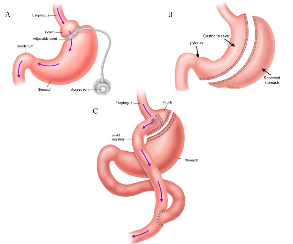 Anaplastology