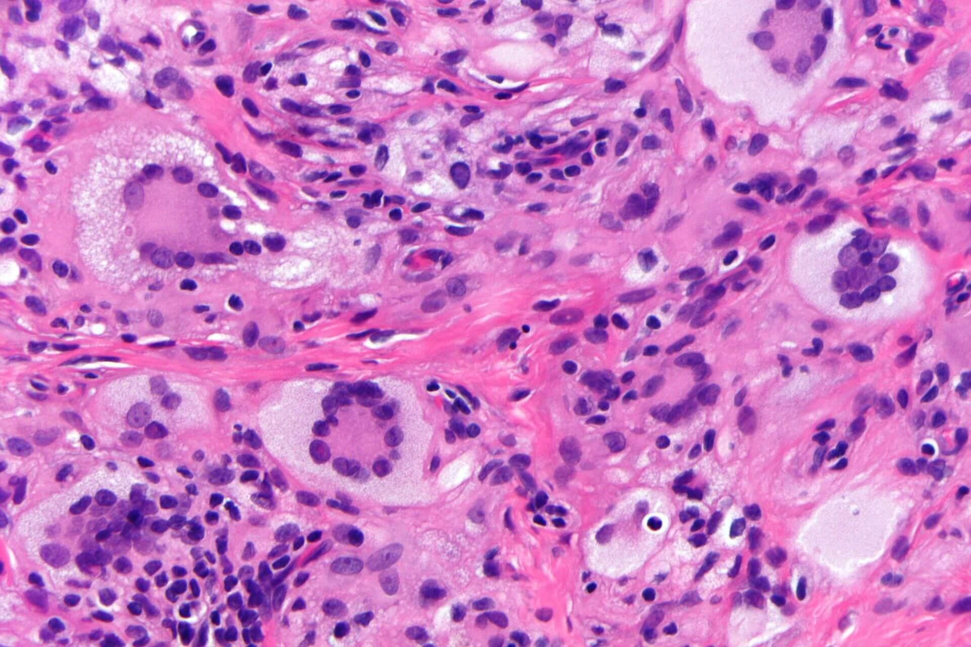 Touton-Riesenzelle