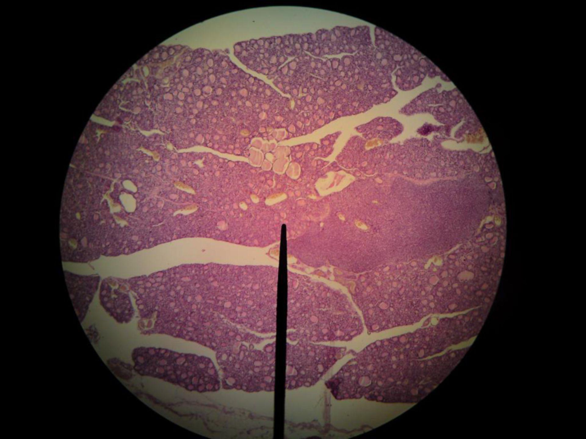 Prismatic epithelium- thyroid gland of dog