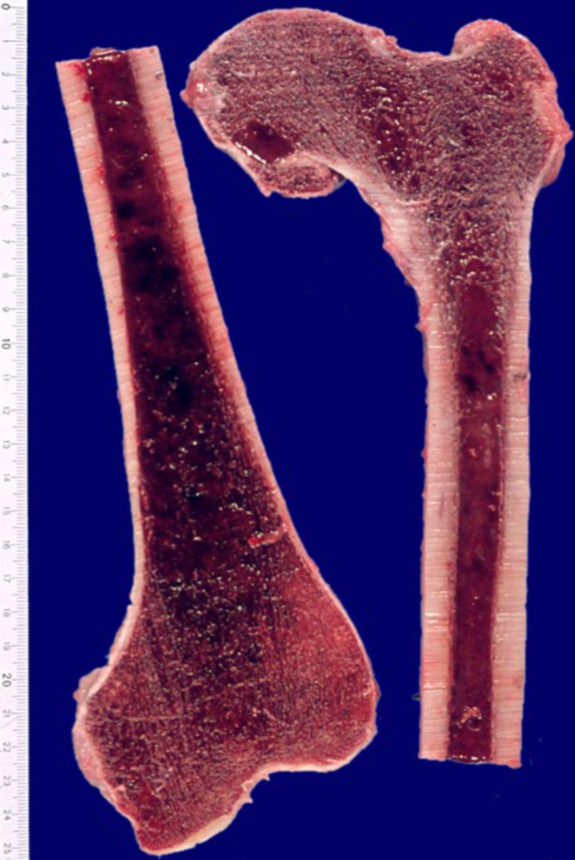 Hyperplastisches Knochenmark bei akuter myeloischer Leukämie