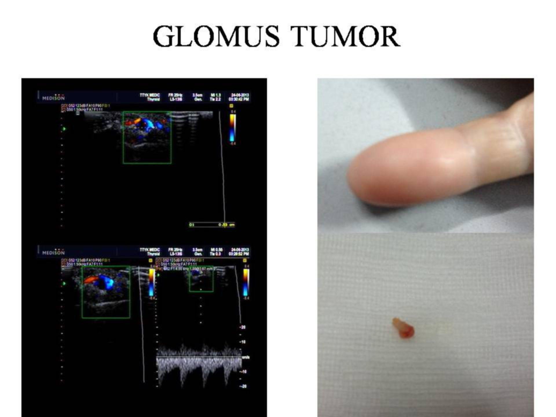 Tumor del glomus (1)