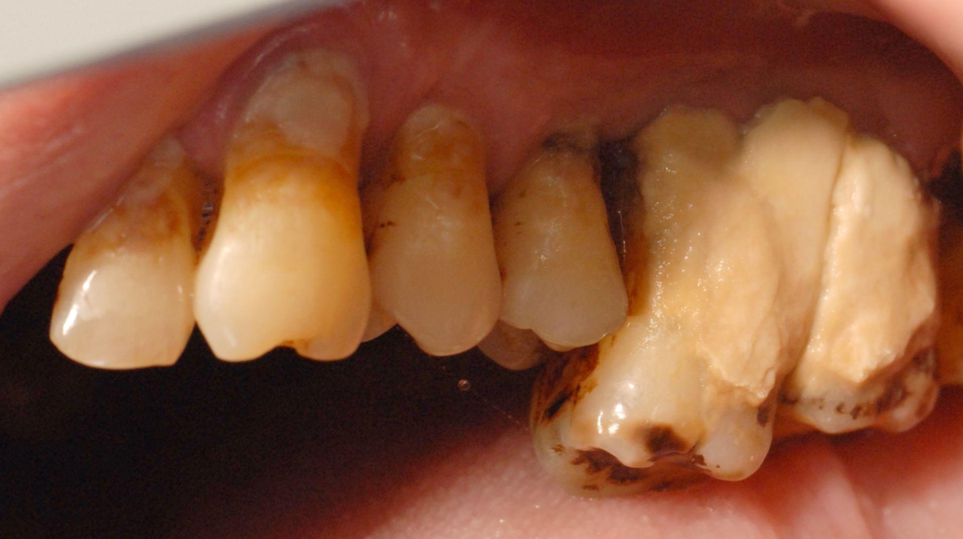 Calcolo dentale, regione 26-27