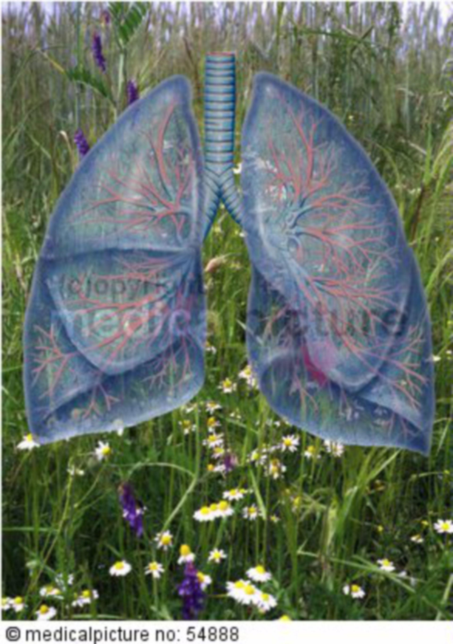 Allergische Lungenerkrankungen
