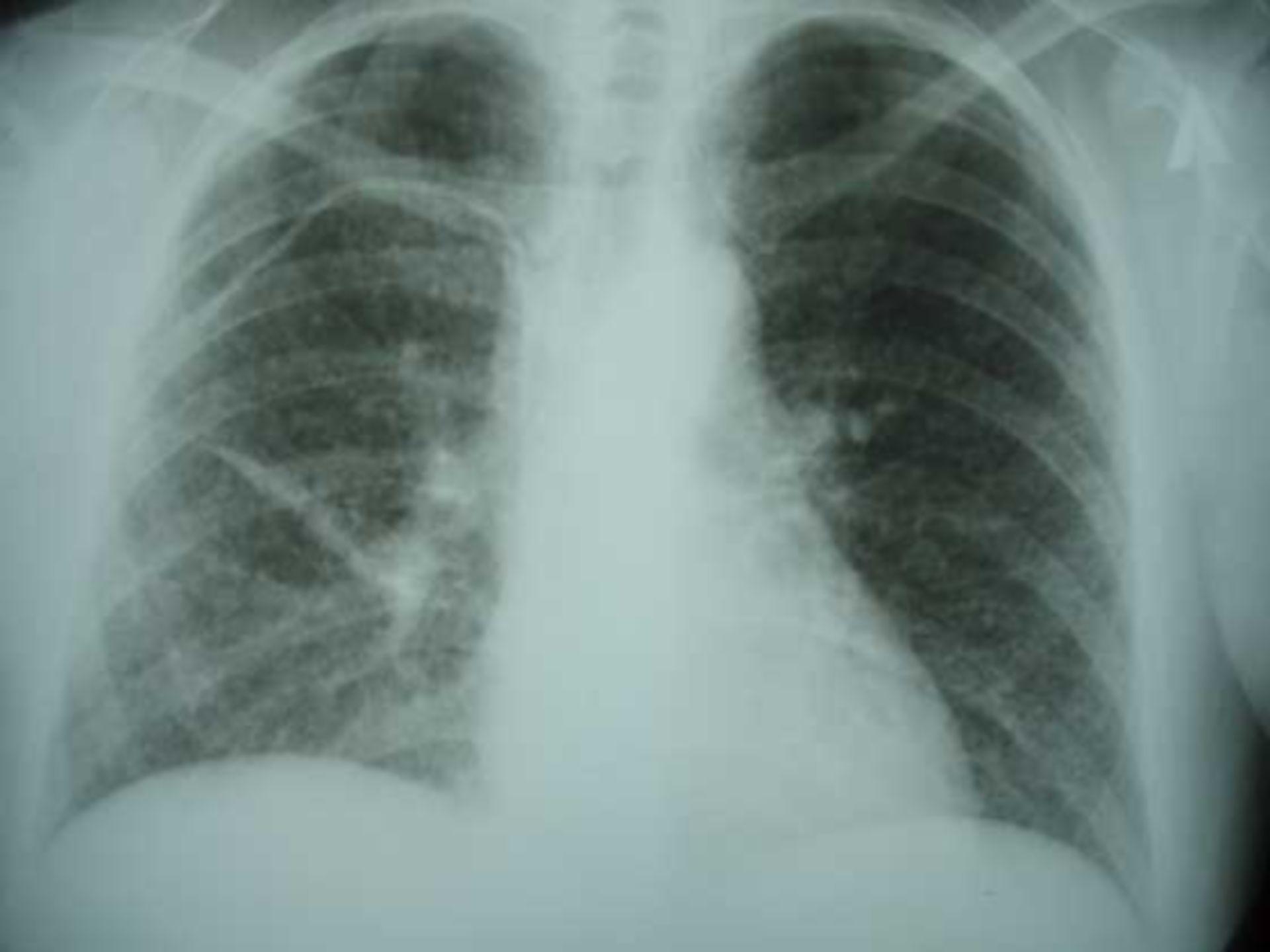 Tubercolosi miliare