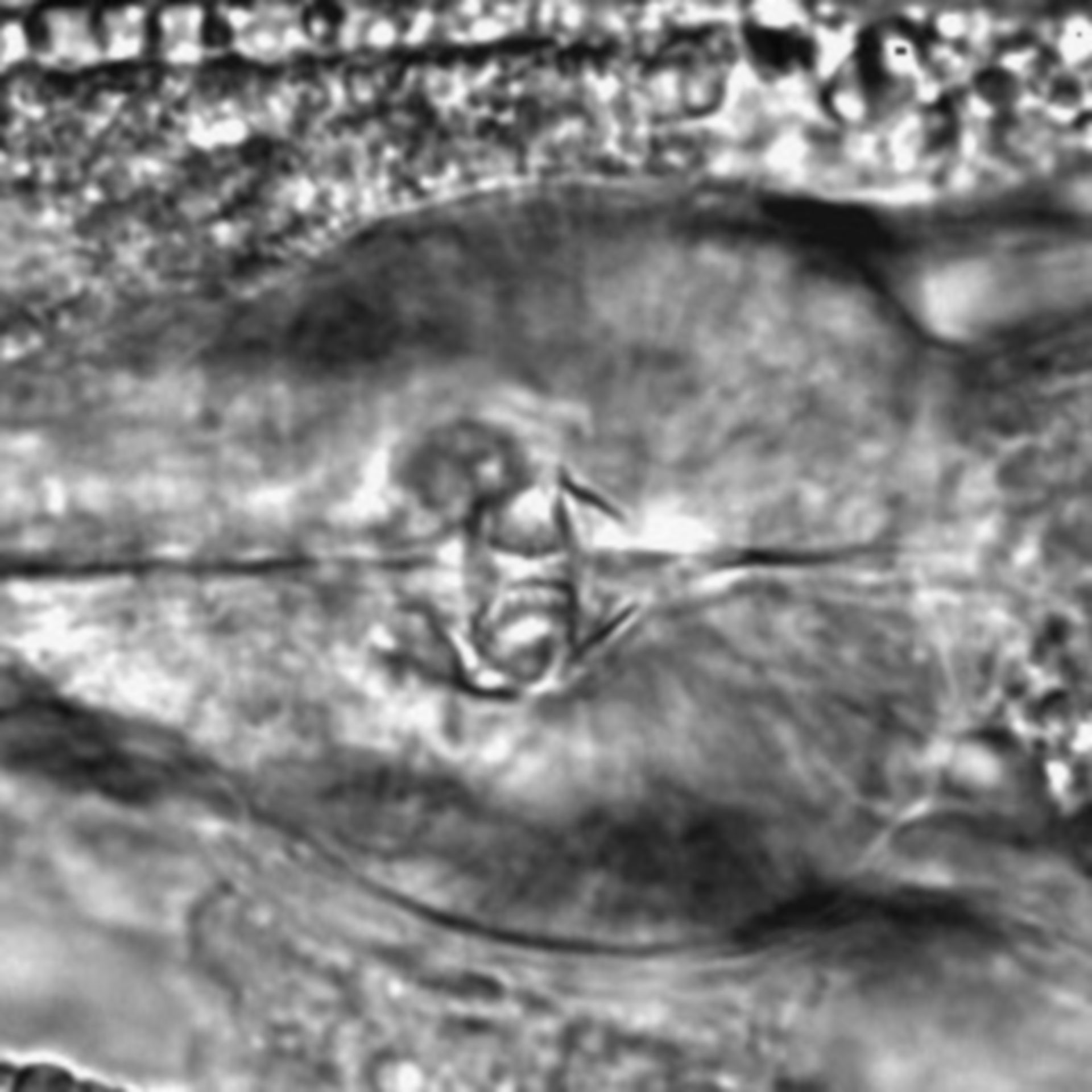 Caenorhabditis elegans - CIL:1944
