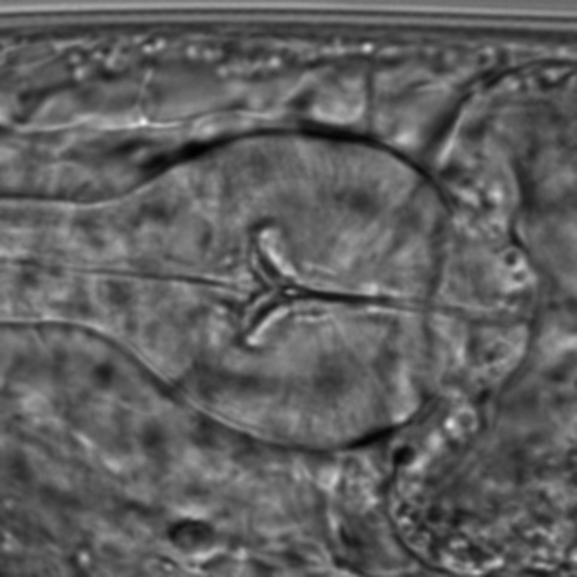 Caenorhabditis elegans - CIL:1616