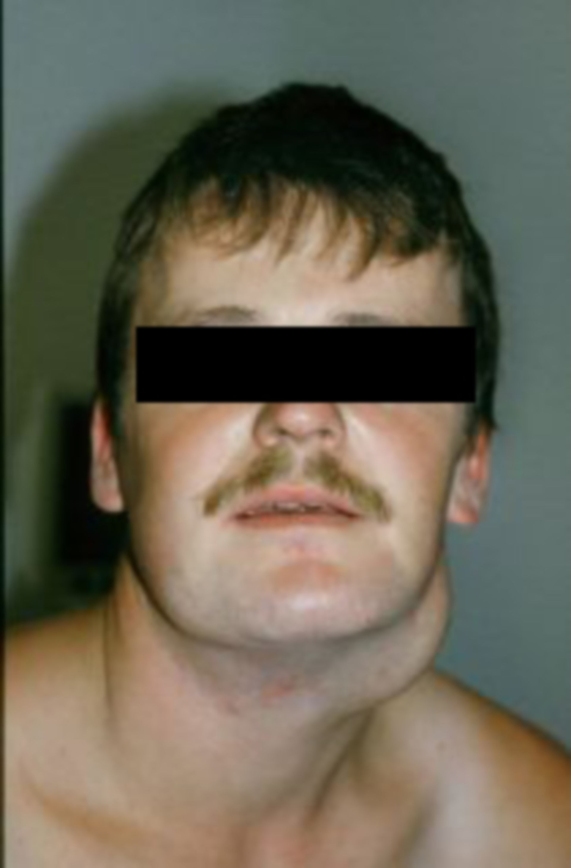 Patient with benign and large cyst on his neck