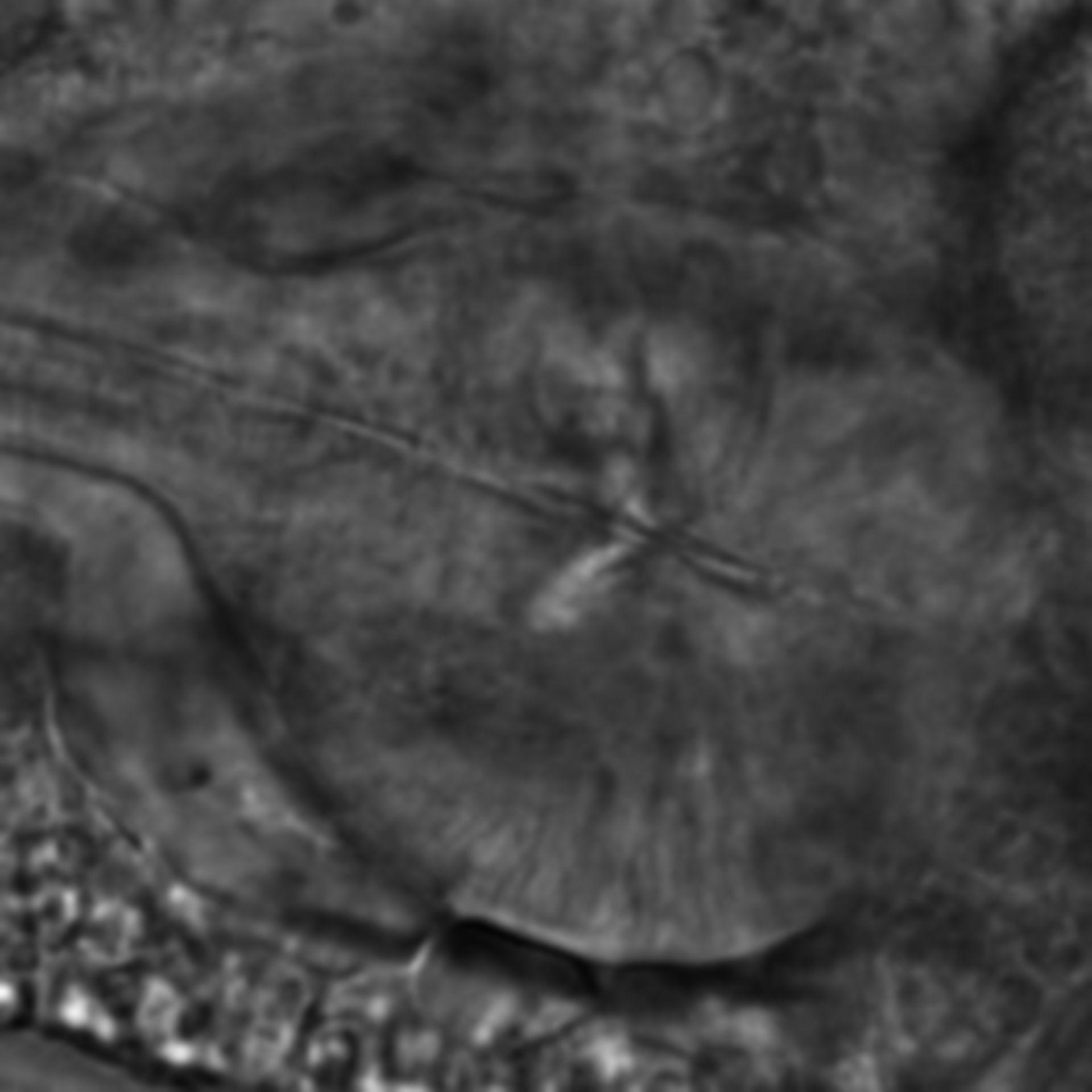Caenorhabditis elegans - CIL:2163