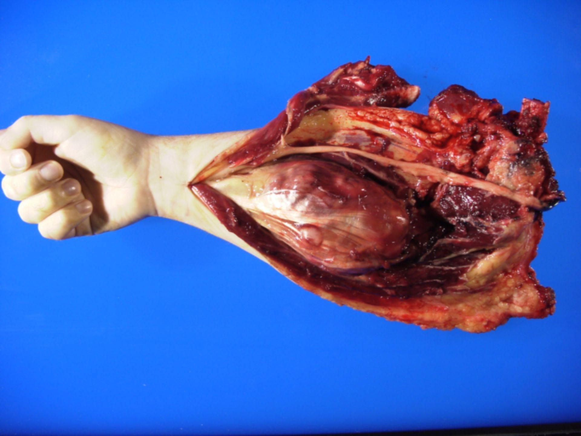 Maligner Tumor peripherer Nervenscheiden