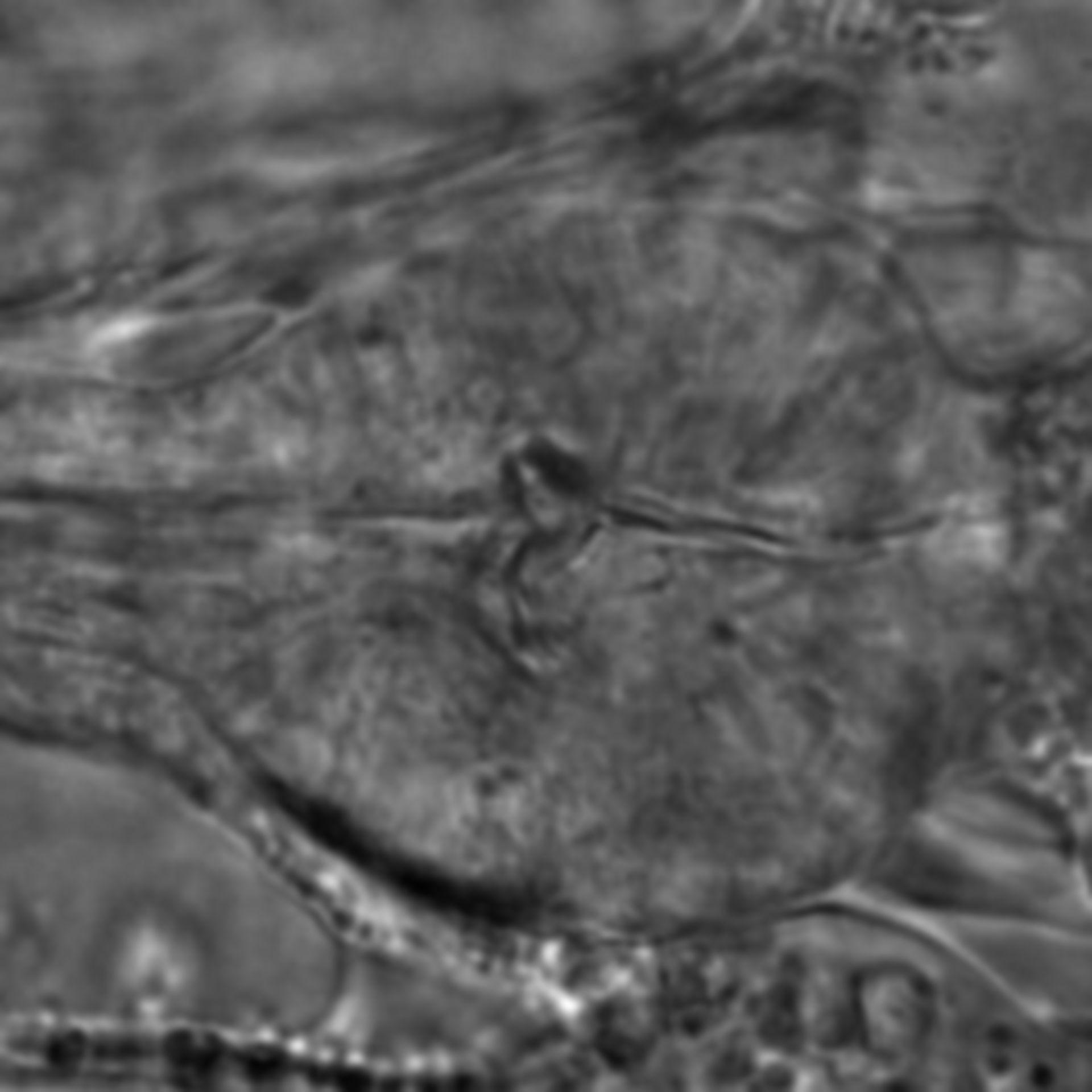 Caenorhabditis elegans - CIL:1757