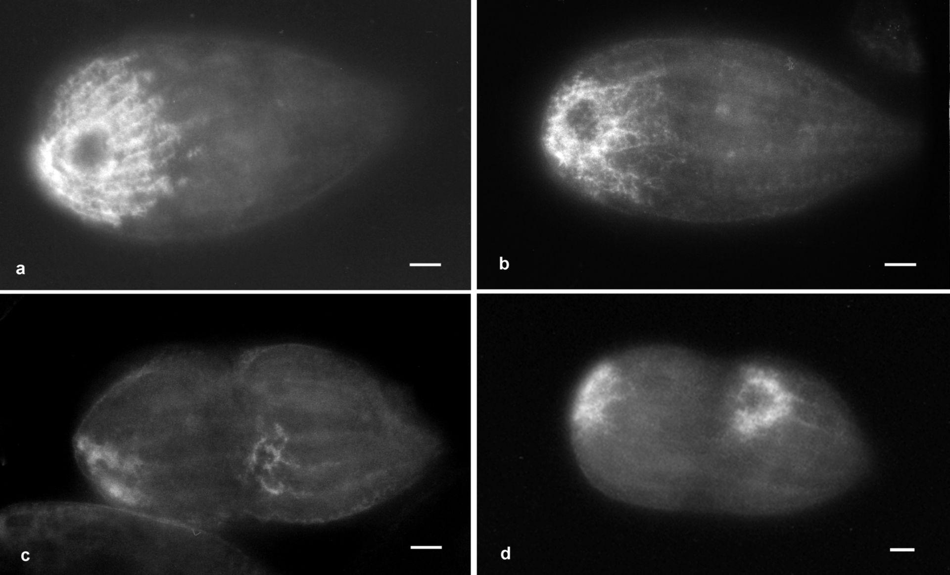 Tetrahymena pyriformis (Vacuolo) - CIL:36287