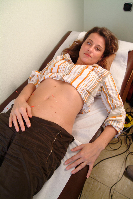 Acupuncture, abdomen (8)