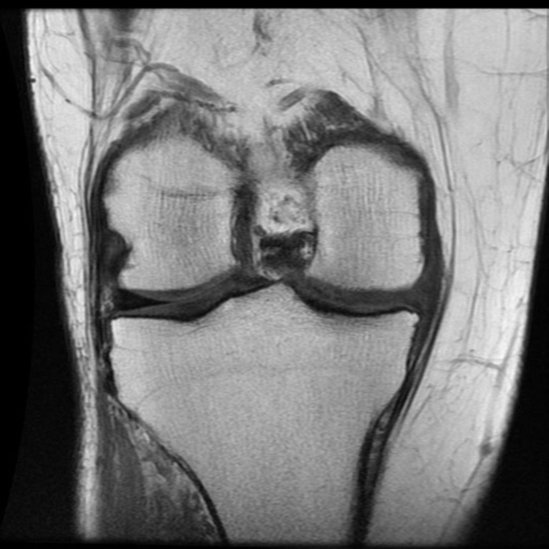 MRI: ginocchio