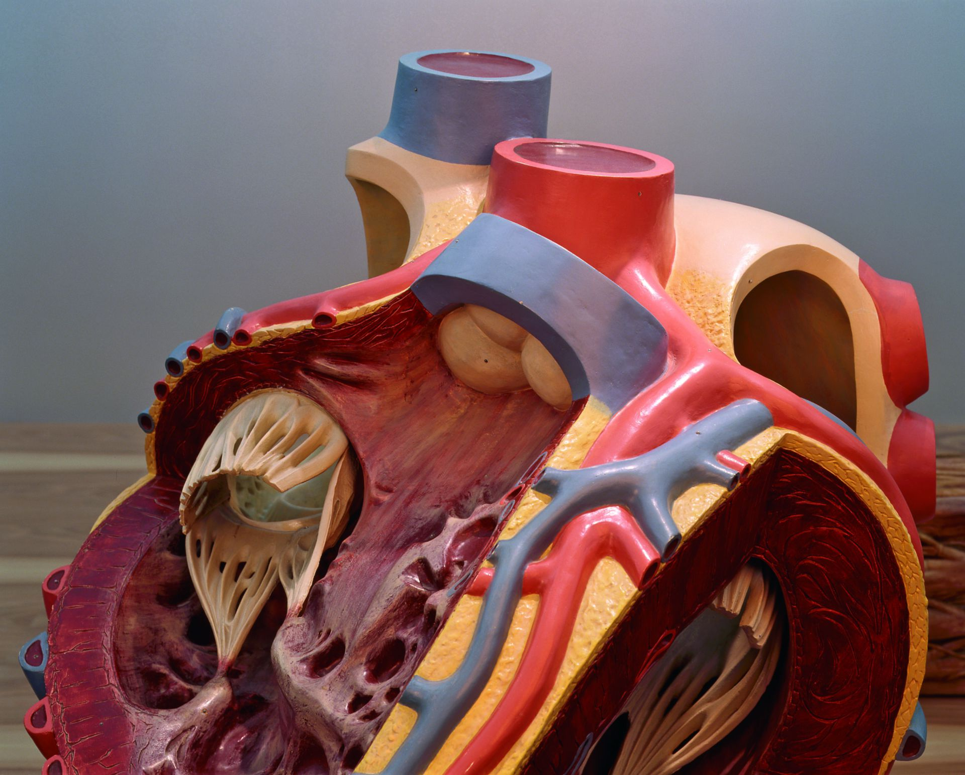 Model of a human heart