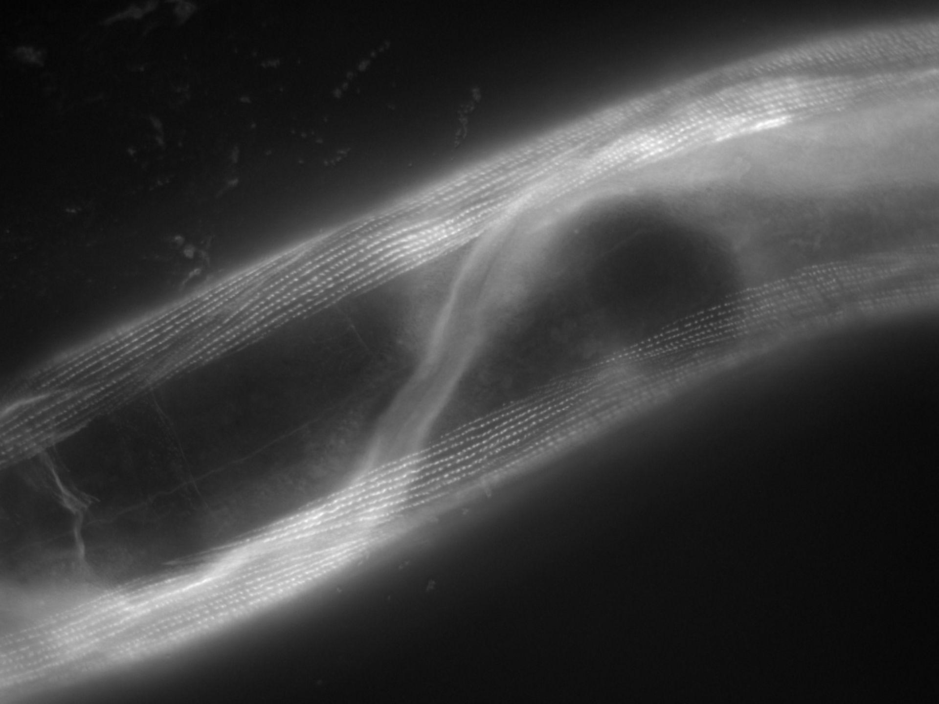 Caenorhabditis elegans (filamento di actina) - CIL:1159