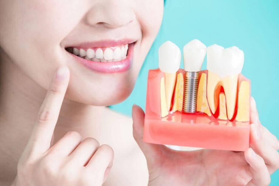 dentalimplants-800-oct2018-920x613_original.jpg