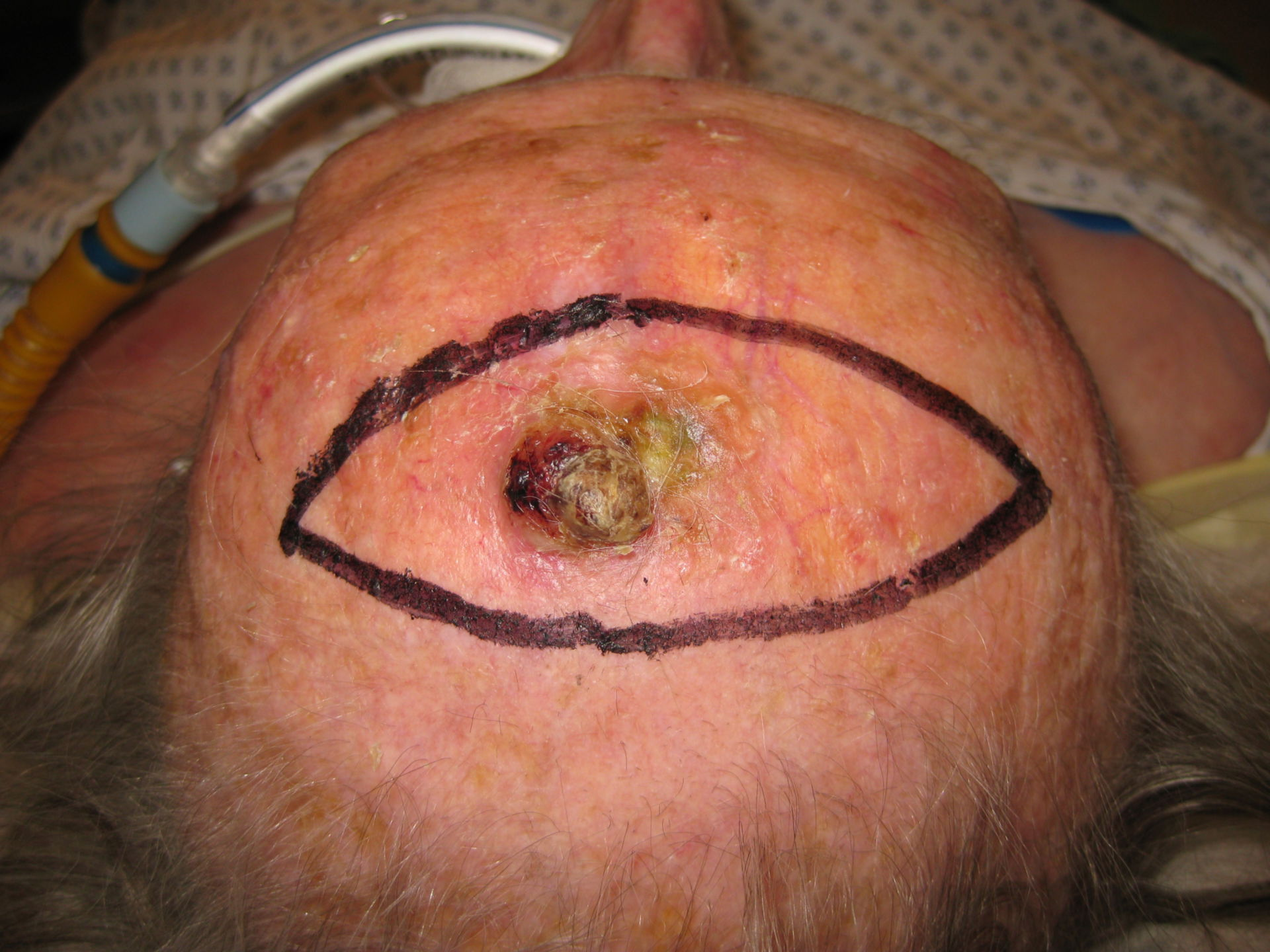 Squamous cell carcinoma of the scalp