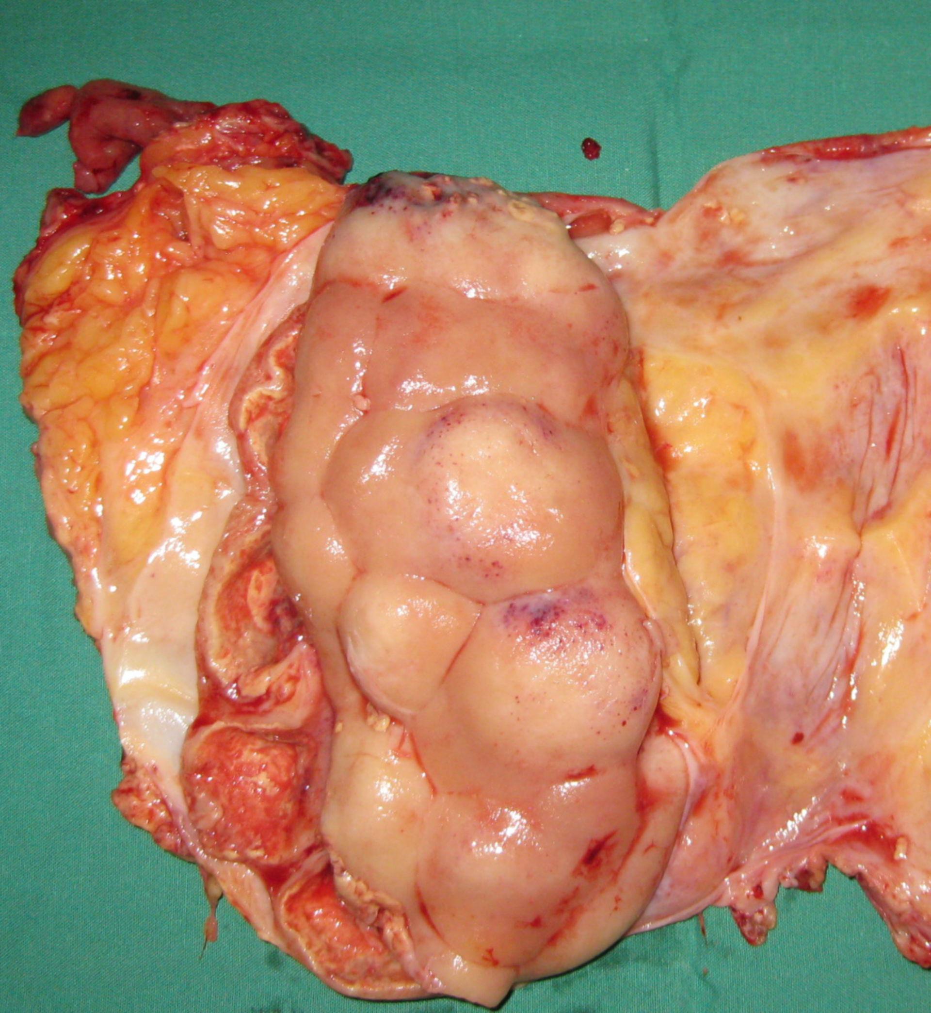 Pyonephrosis, renal capsula opened.