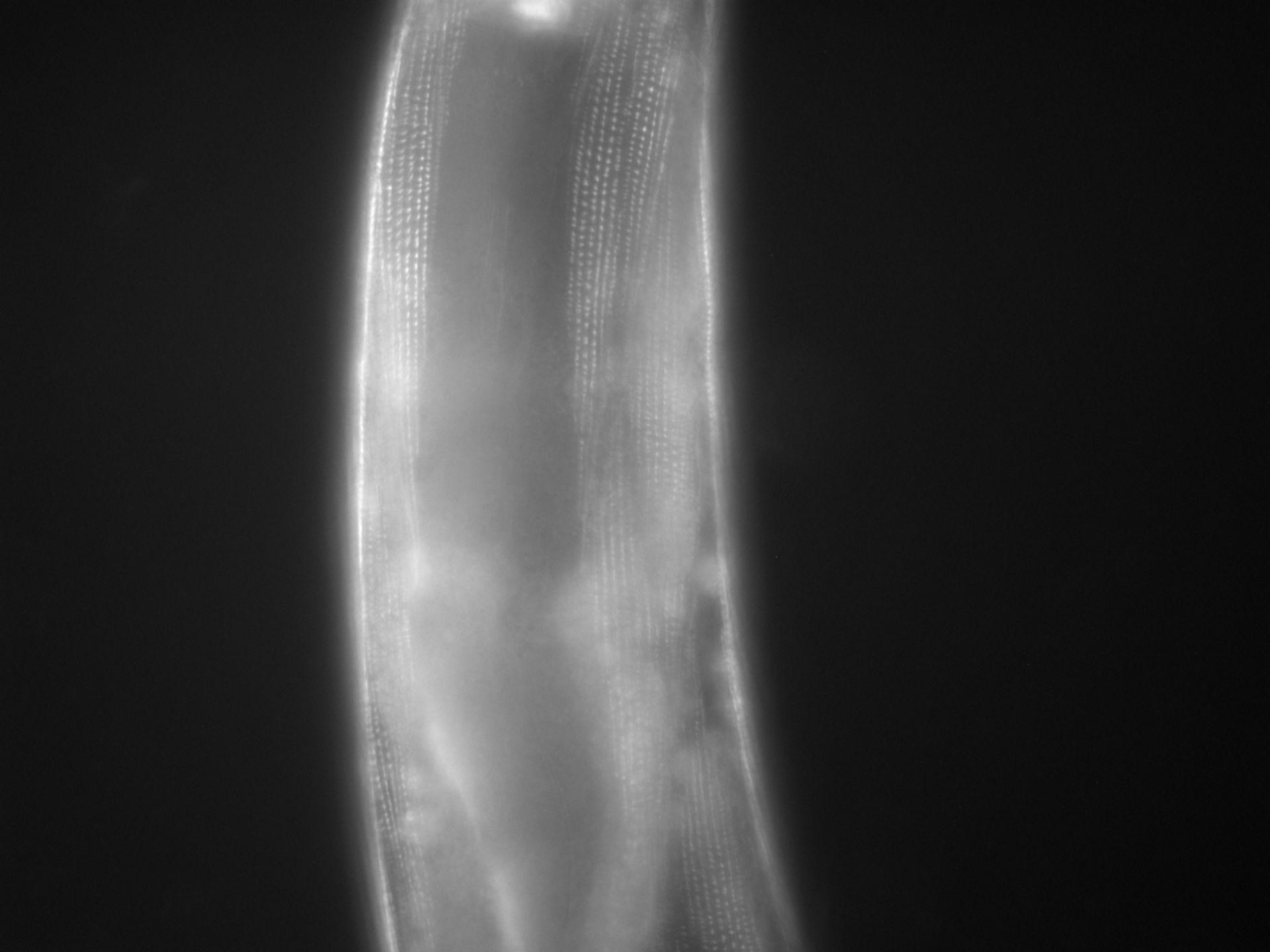 Caenorhabditis elegans (filamento di actina) - CIL:1128