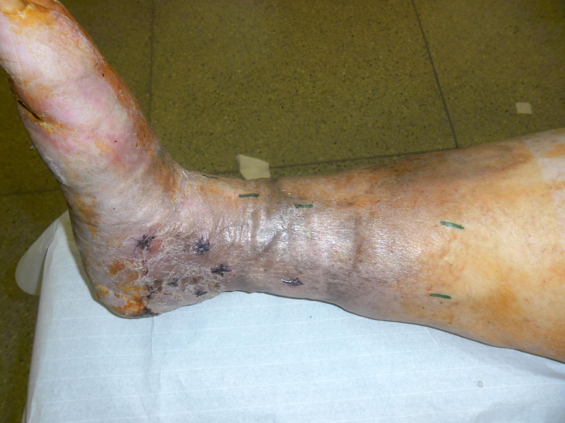 Varicosis - dermatitis congestiva