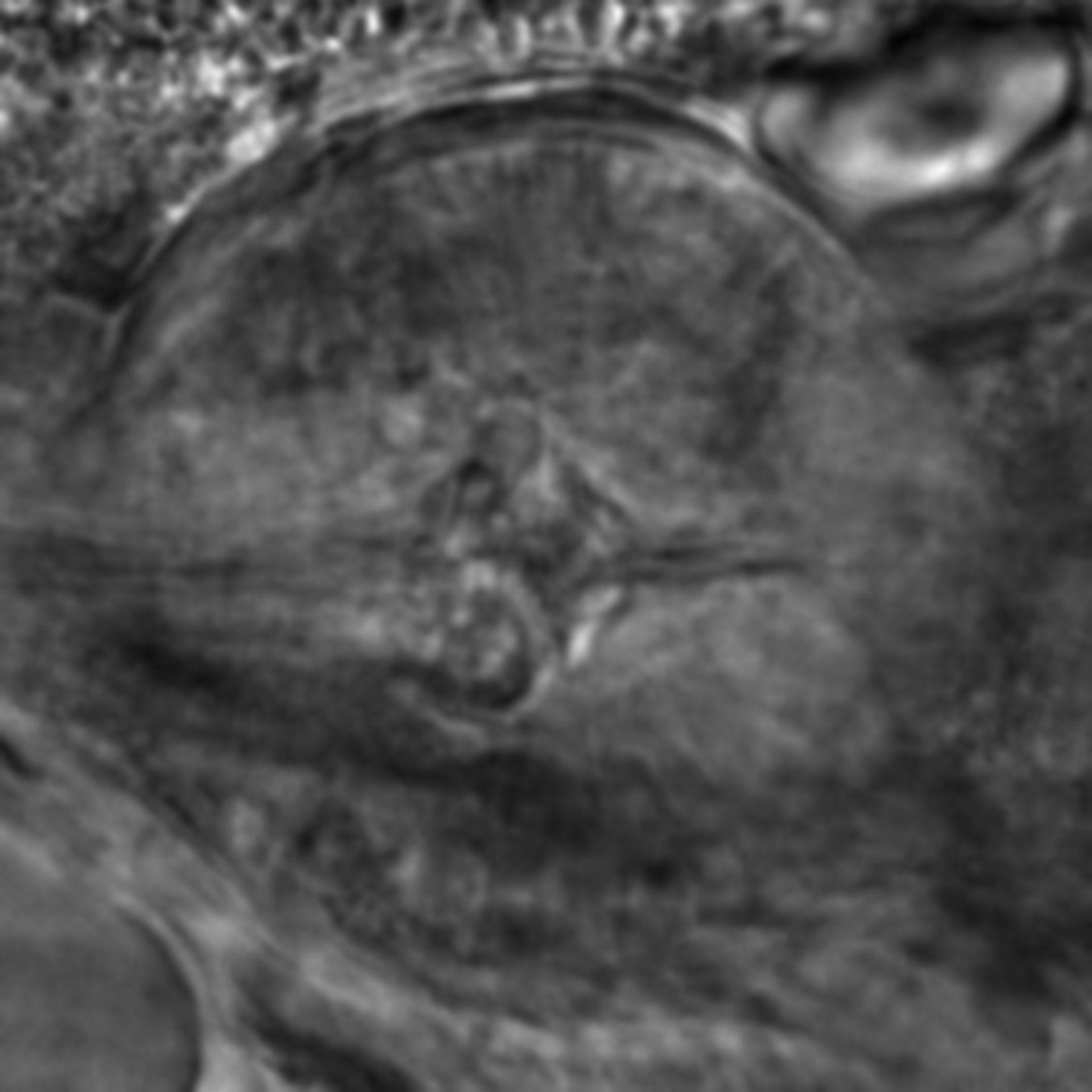 Caenorhabditis elegans - CIL:2274