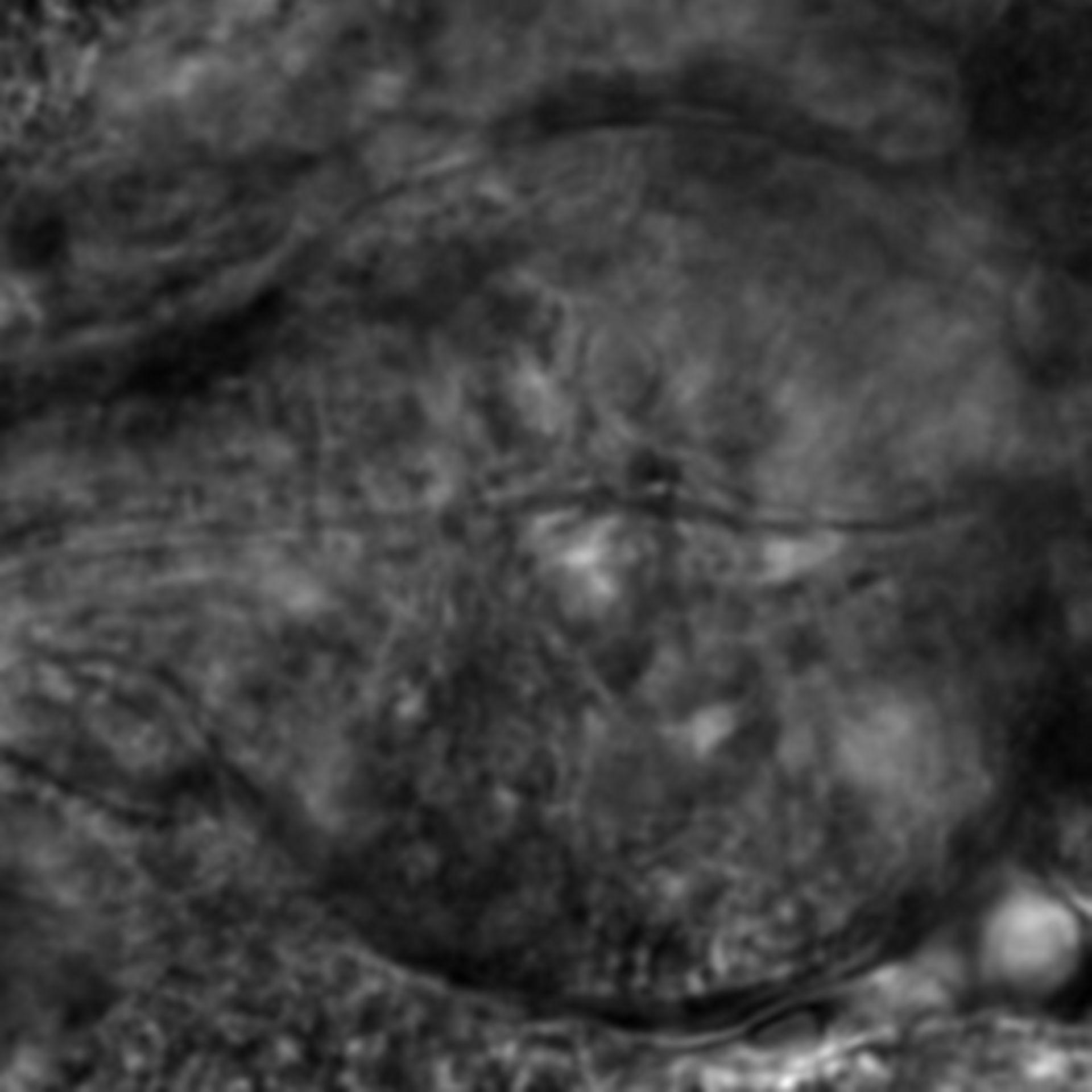 Caenorhabditis elegans - CIL:2549