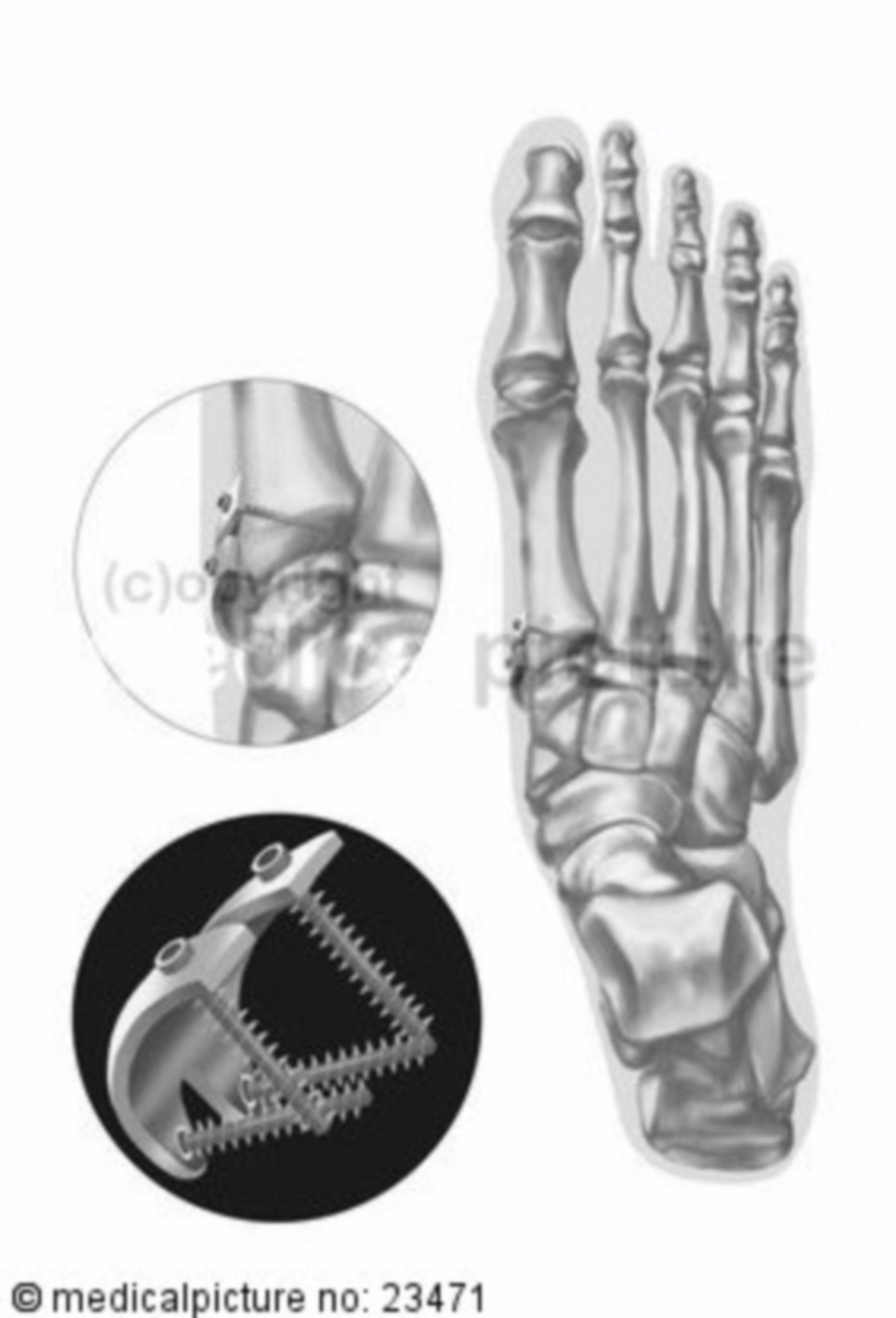 Operative Korrektur (Implantation) eines Hallux valgus