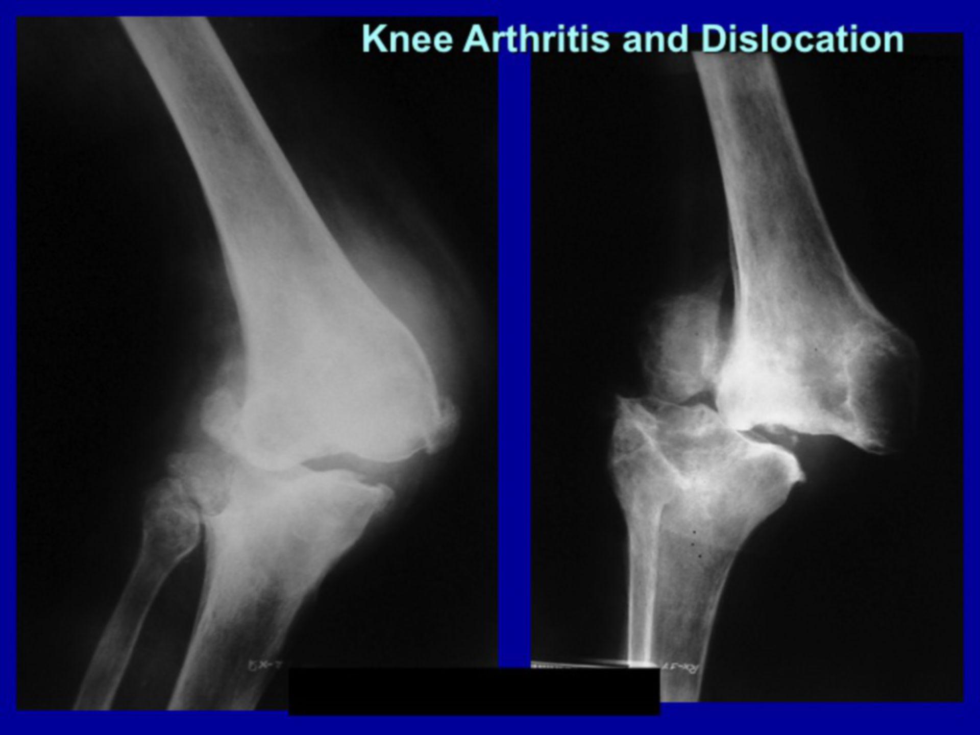 Arthritis Kniegelenk - Arthroplastik