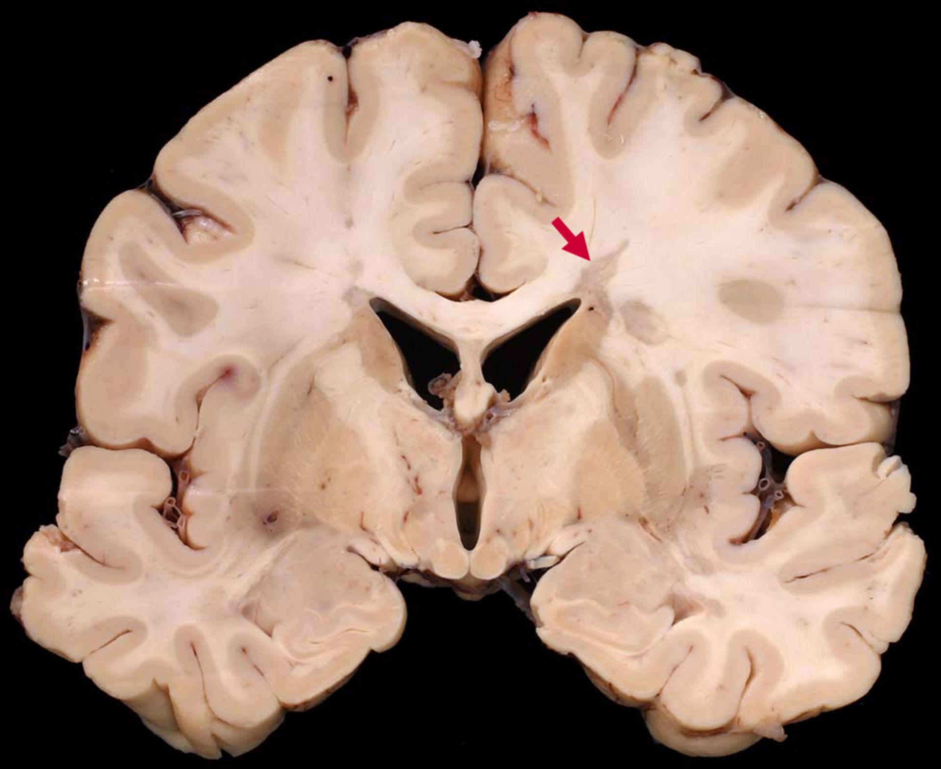 Cellule piramidali all'interno del cervelletto