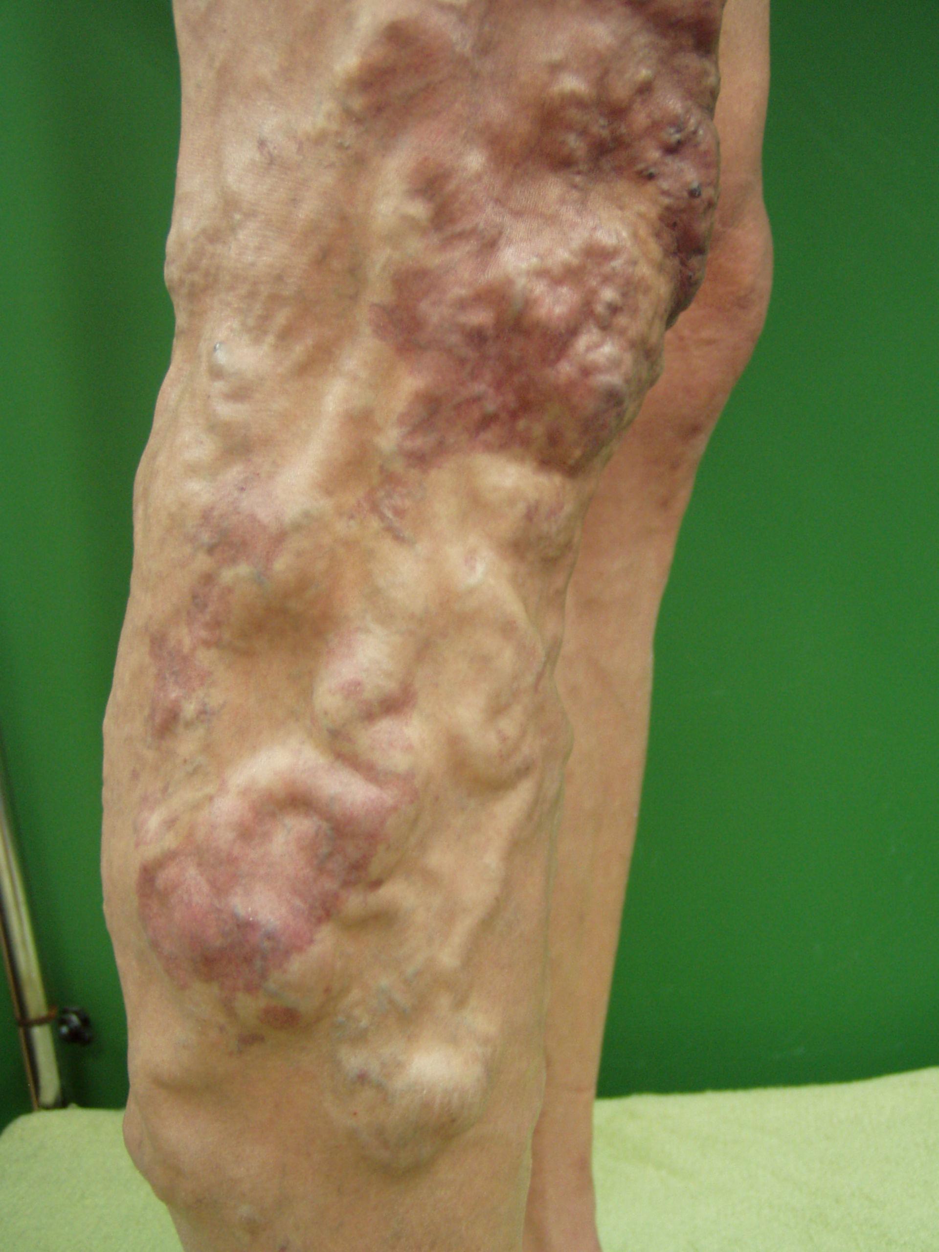 Síndrome de Klippel-Tranaunay-Weber