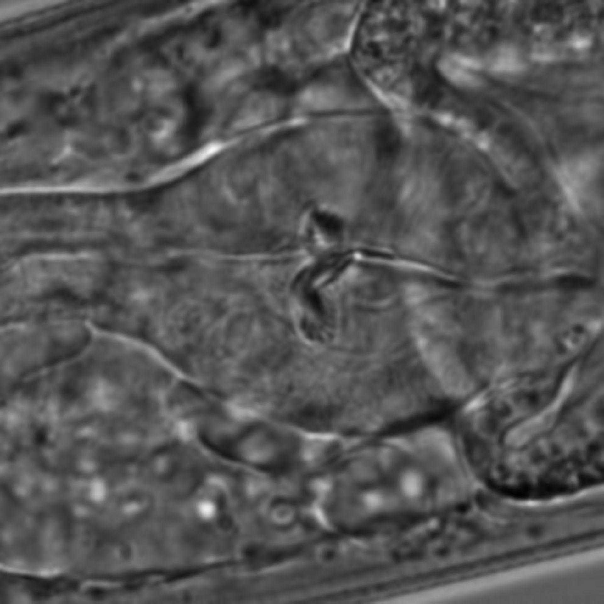 Caenorhabditis elegans - CIL:1618