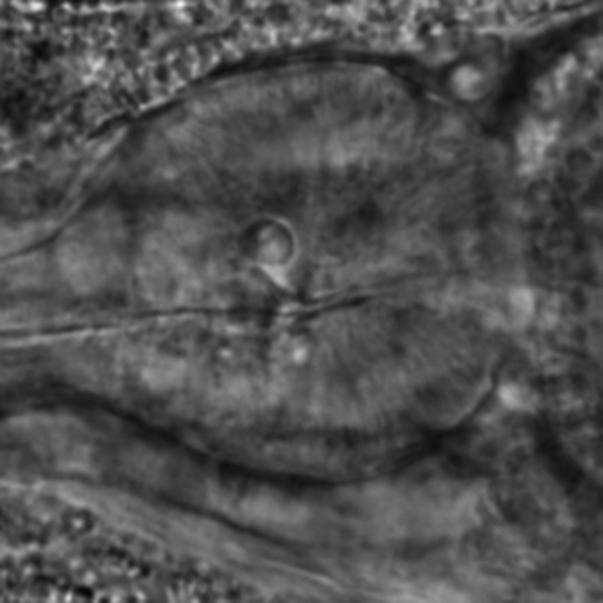 Caenorhabditis elegans - CIL:1994