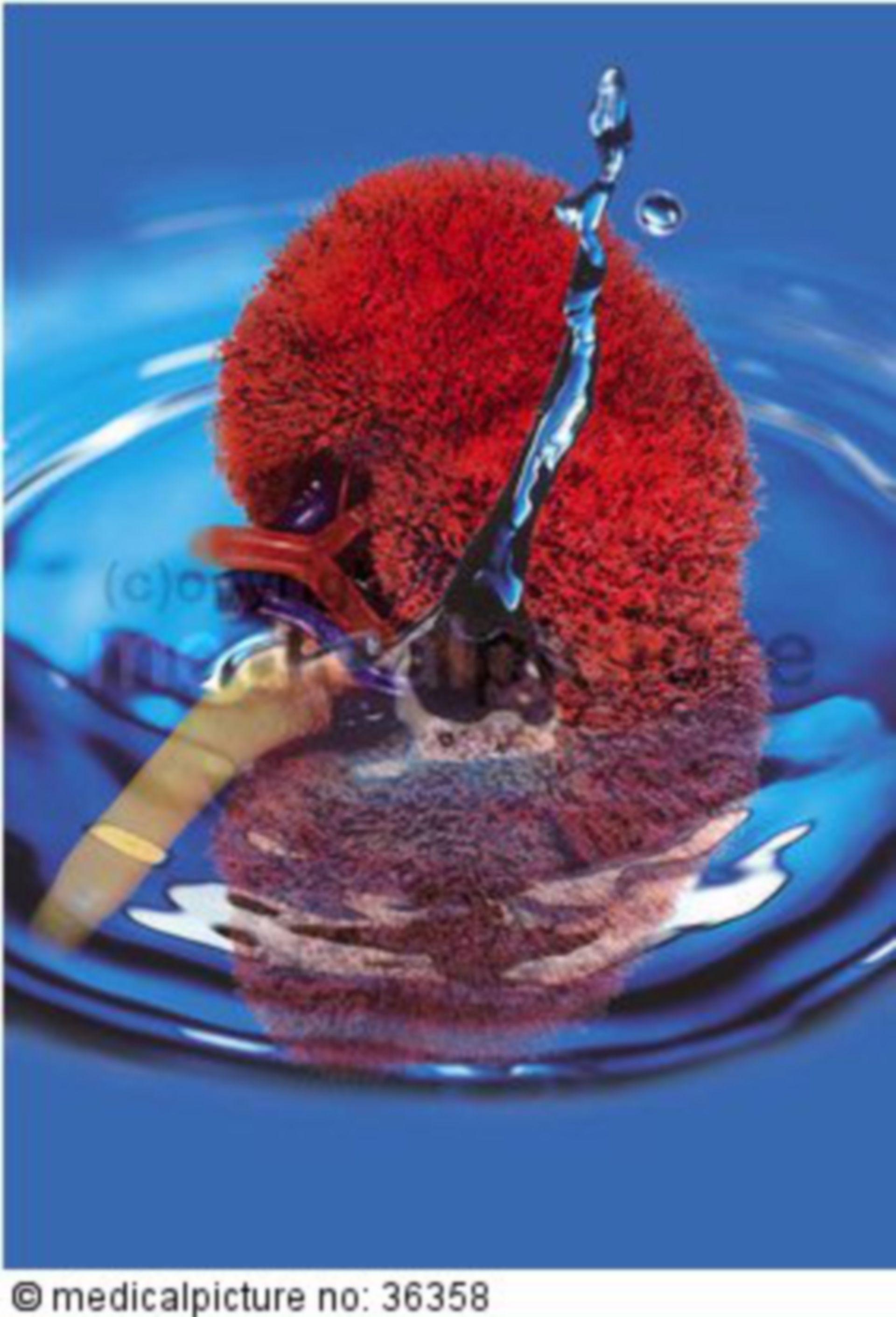 Korrosionspräparat der Niere