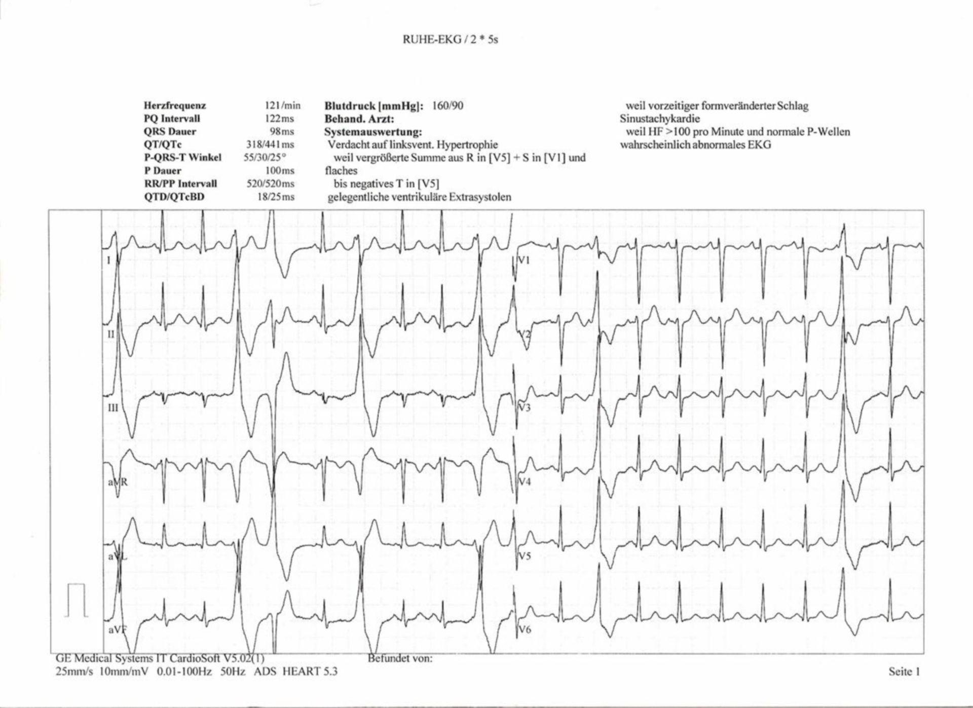 Electrocardiograma patológico de 12 derivaciones