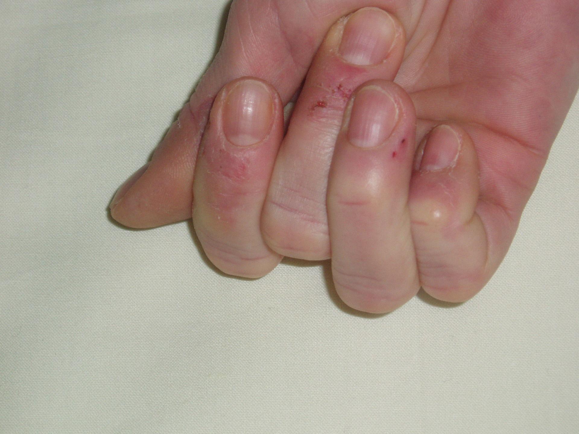 Le lesioni della pelle dopo il trattamento con Taxotere