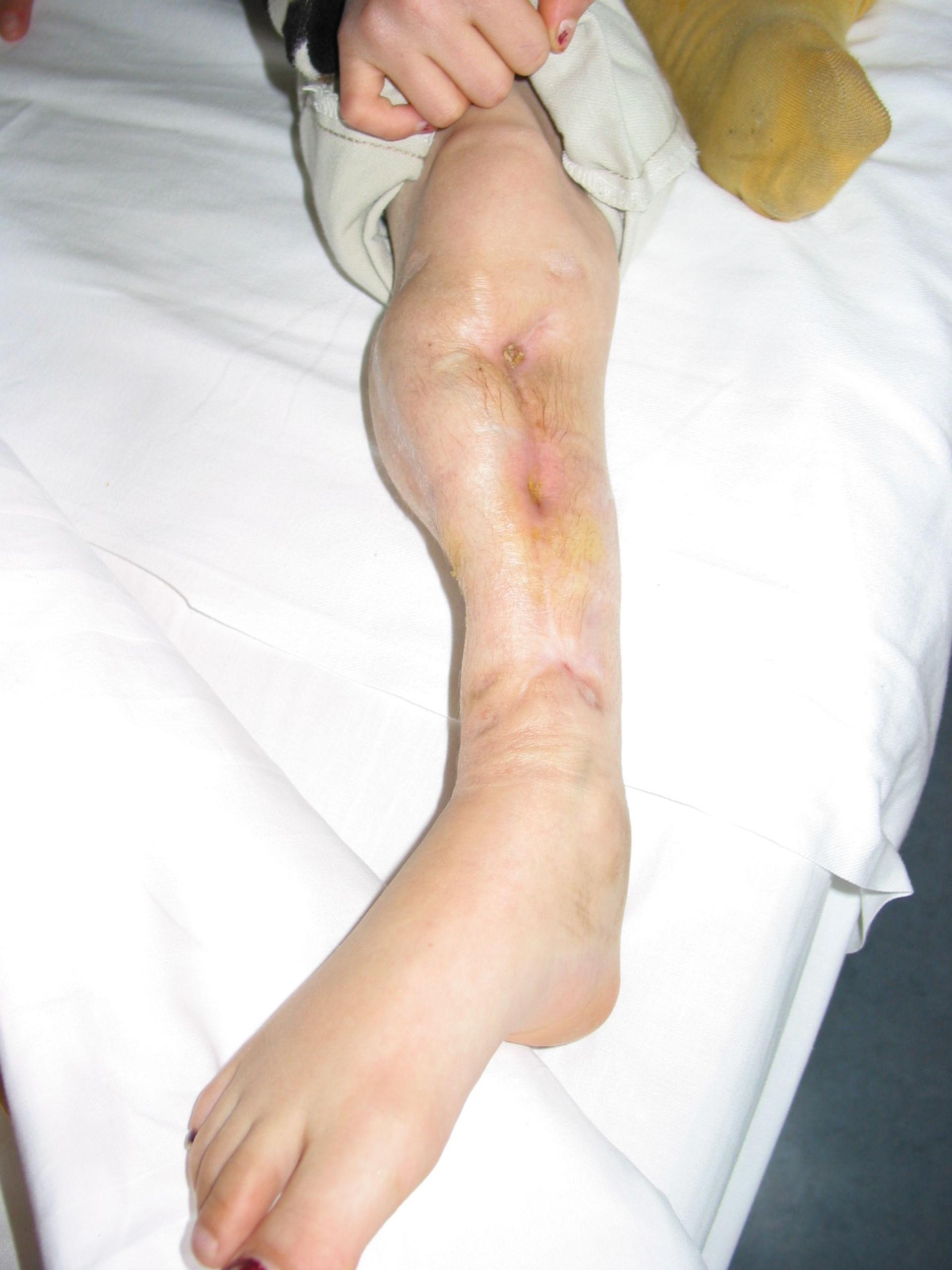 Osteomielitis crónica de la pierna