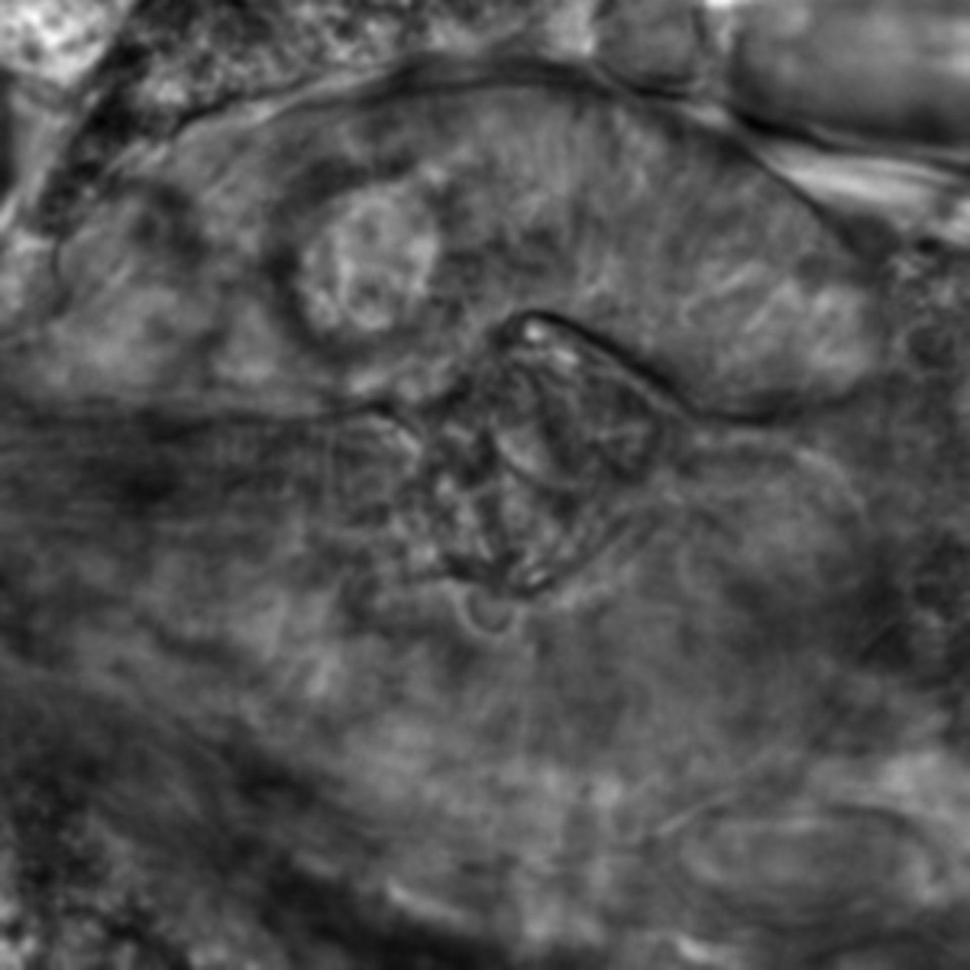 Caenorhabditis elegans - CIL:2702