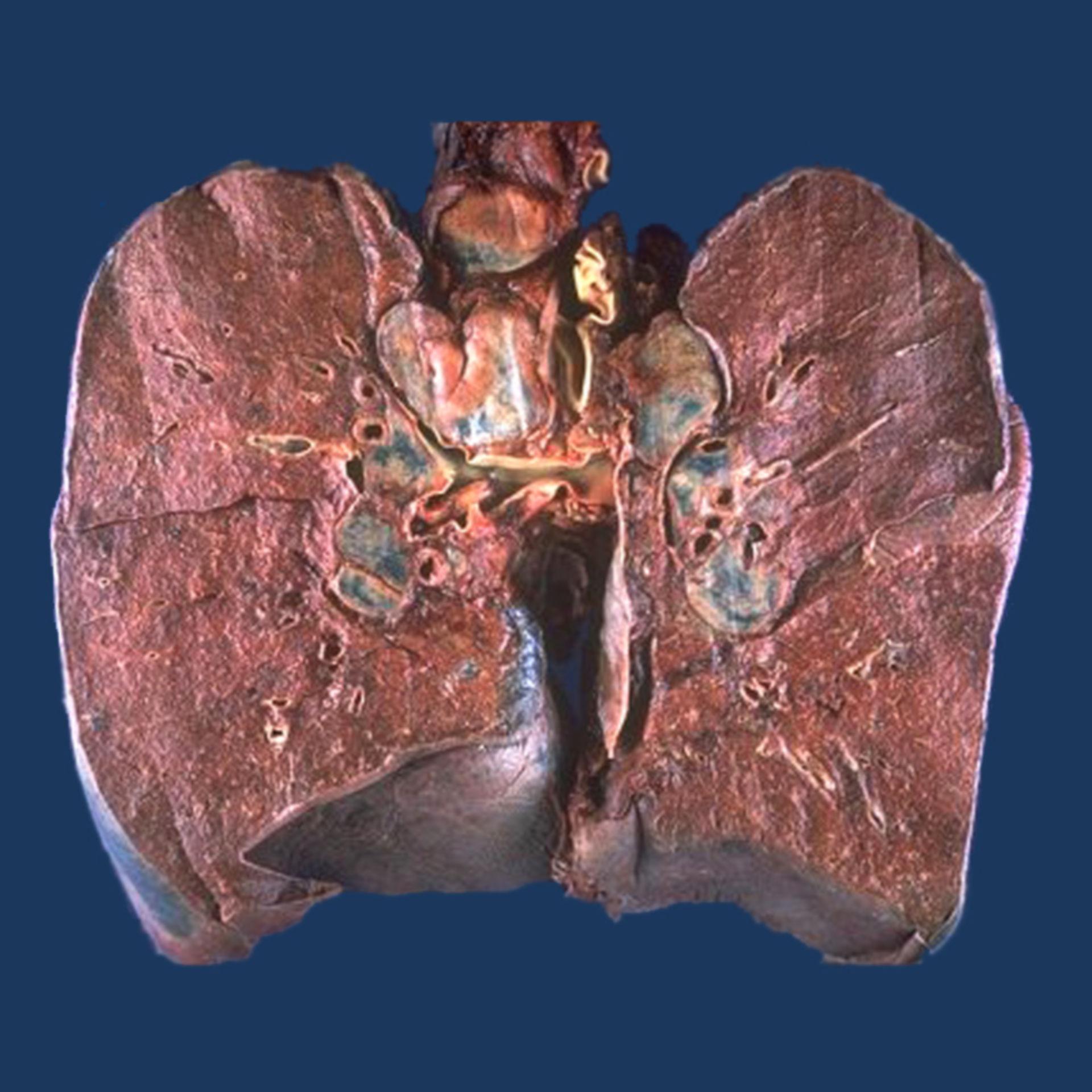 Sarkoidose (Lunge, Präparat, Abb. 1)