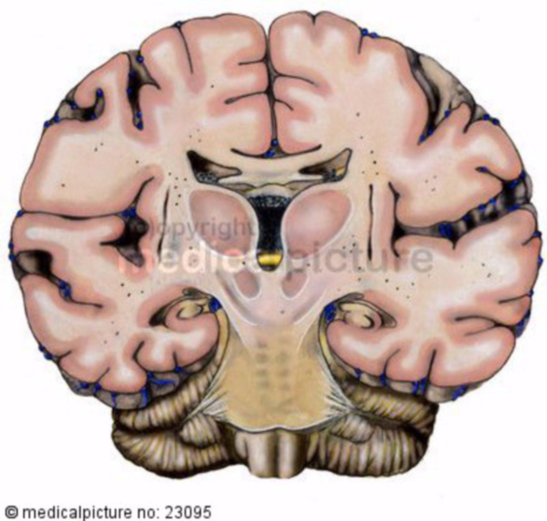 Cervello in una sezione frontale