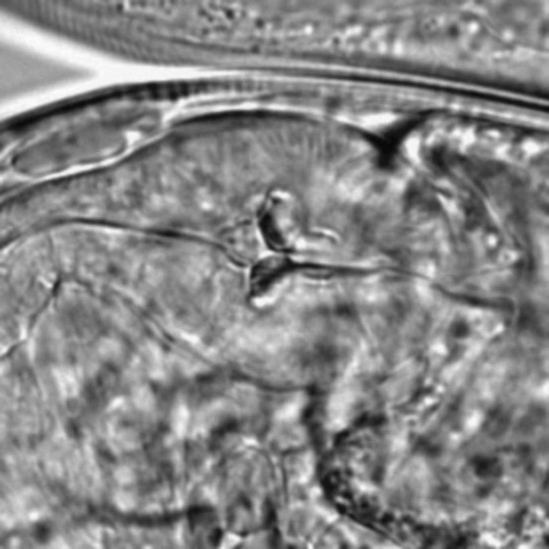 Caenorhabditis elegans - CIL:1629