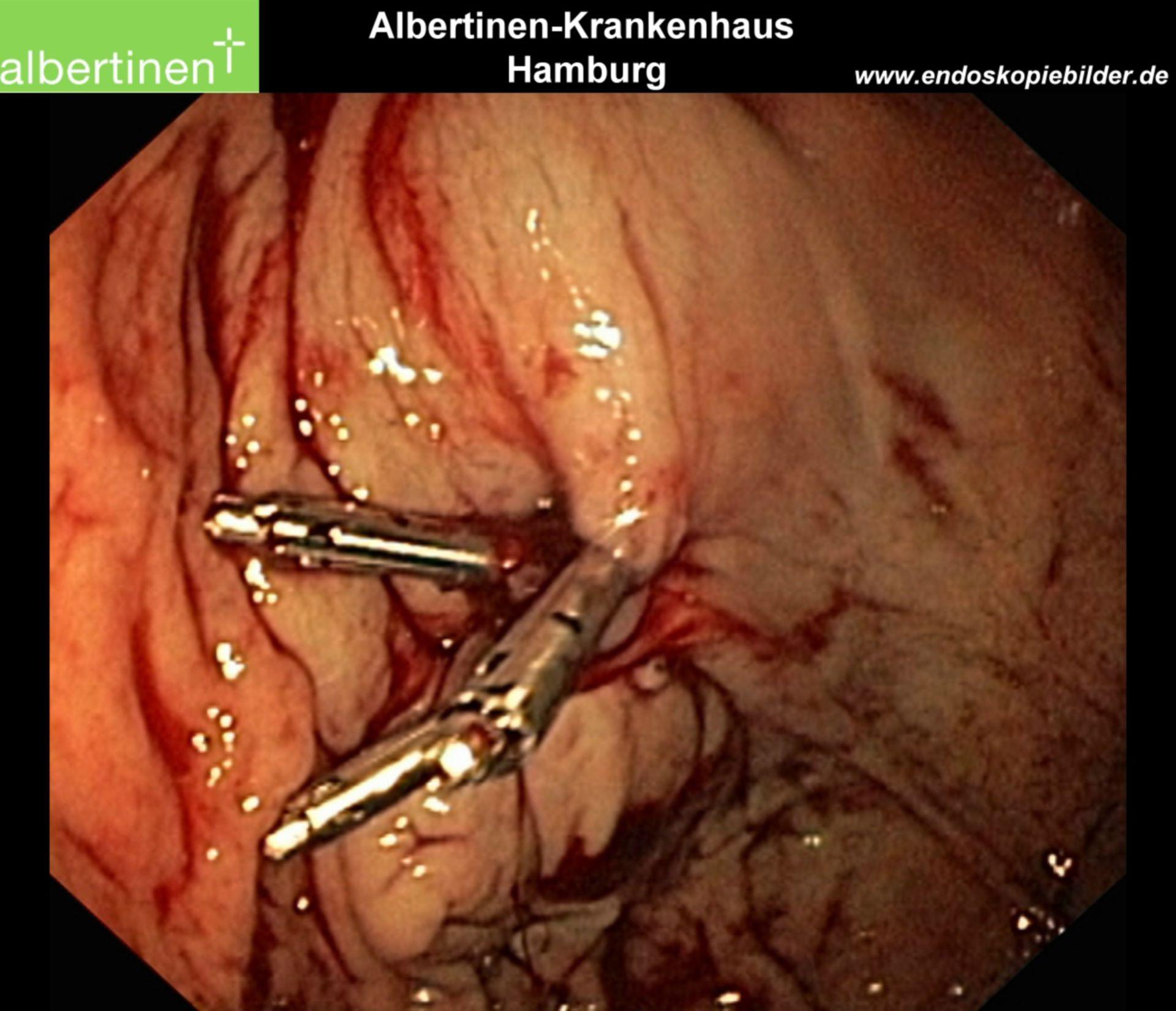 Endoscopy: Forrest 2a hemorrhage